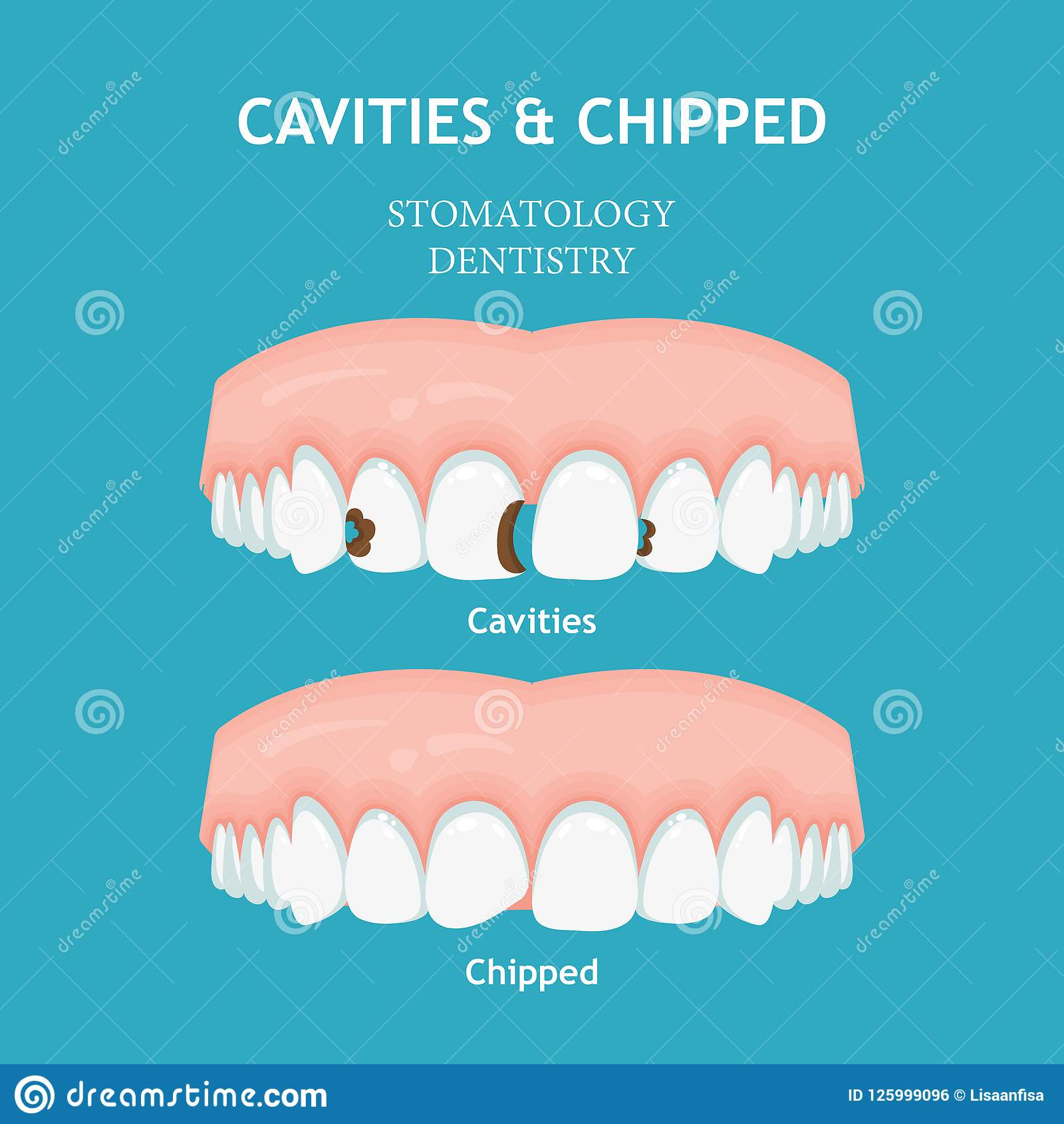 Dental poster. Dentistry and stomatology poster. Cavities and chipped
