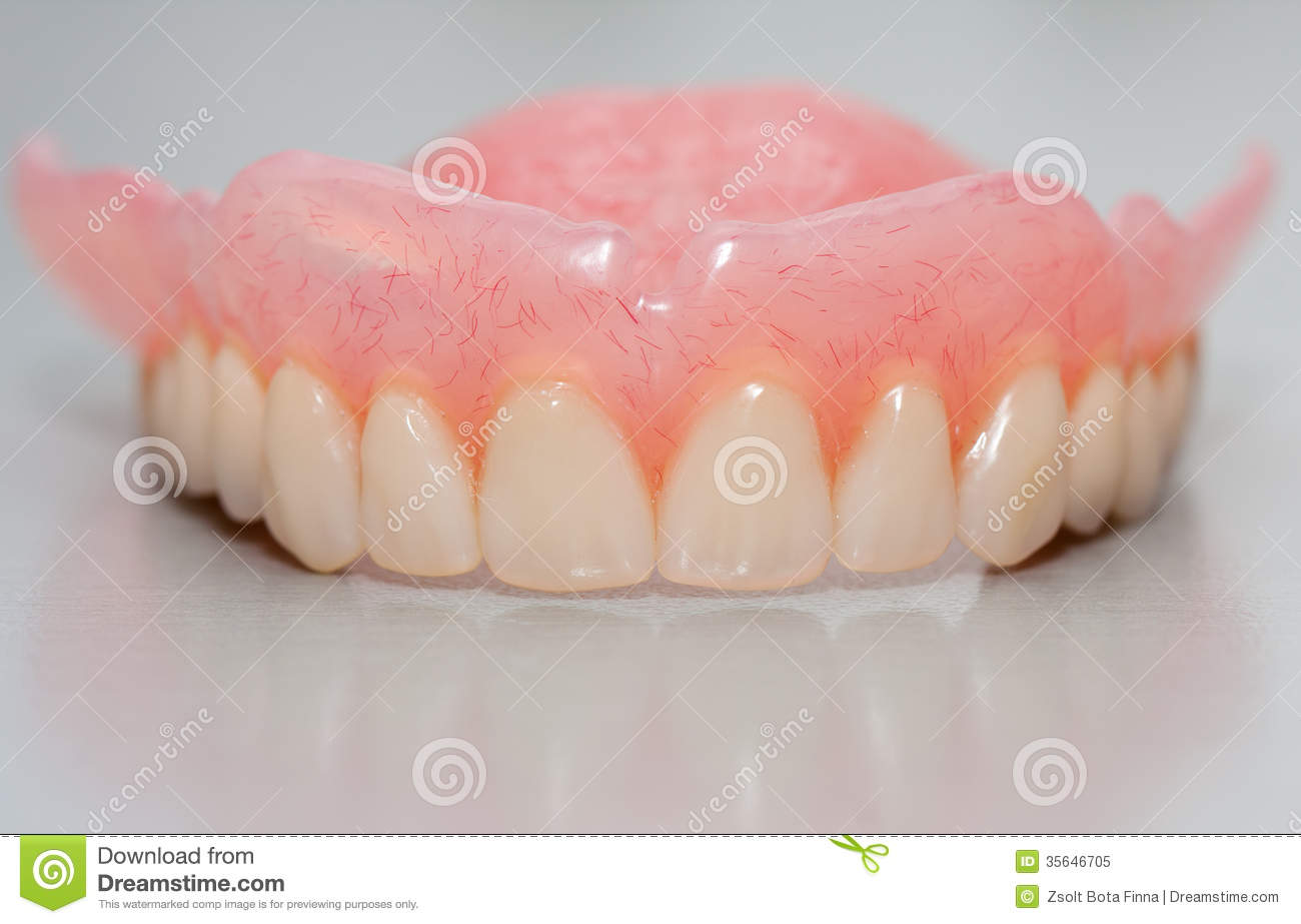 dental prothesis Dental implants: everything you need to know about dental implants is found here easy to understand information about dental implants, also called teeth implants or.