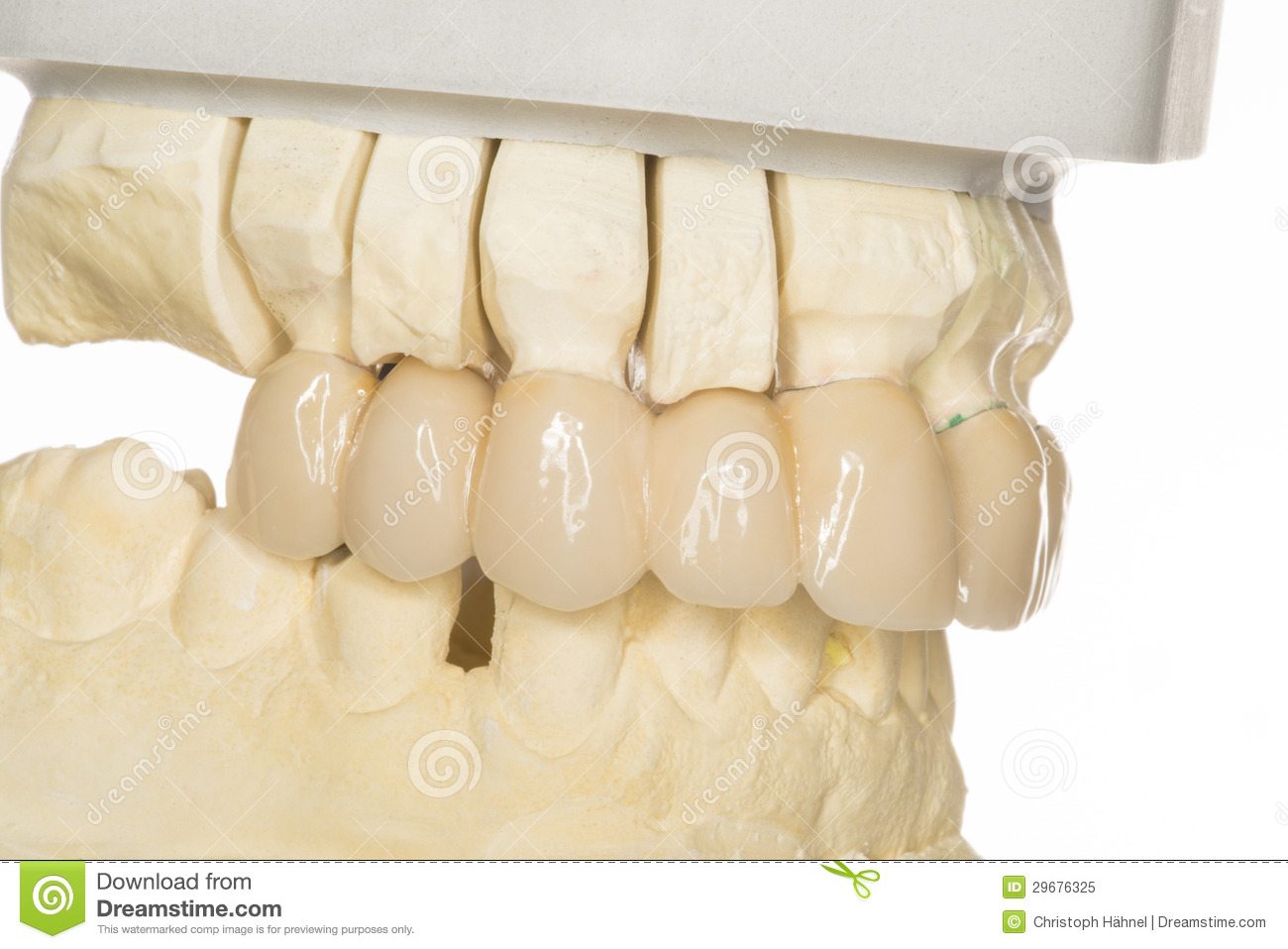 dental prothesis How to afford dental implants the cost of dental implants can be outrageous the benefits of implants over other dental care, however, can be significant because they can entirely replace.