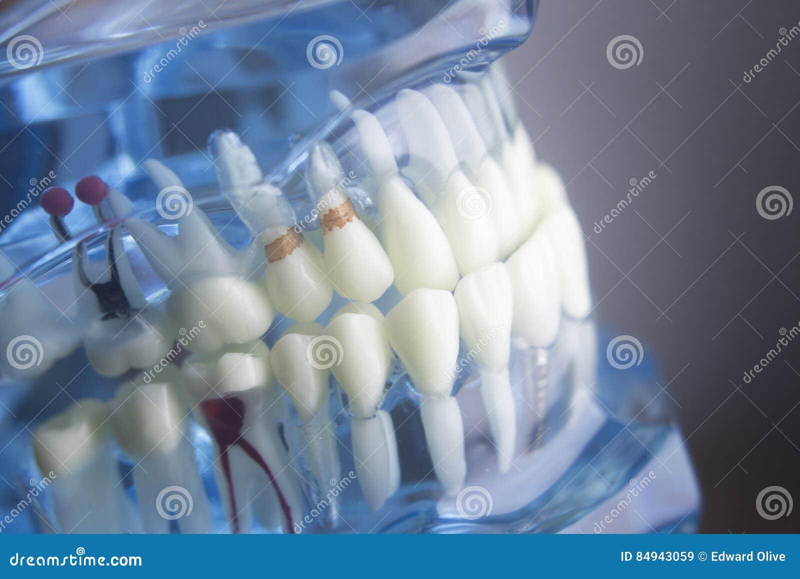 Dental teeth dentistry model