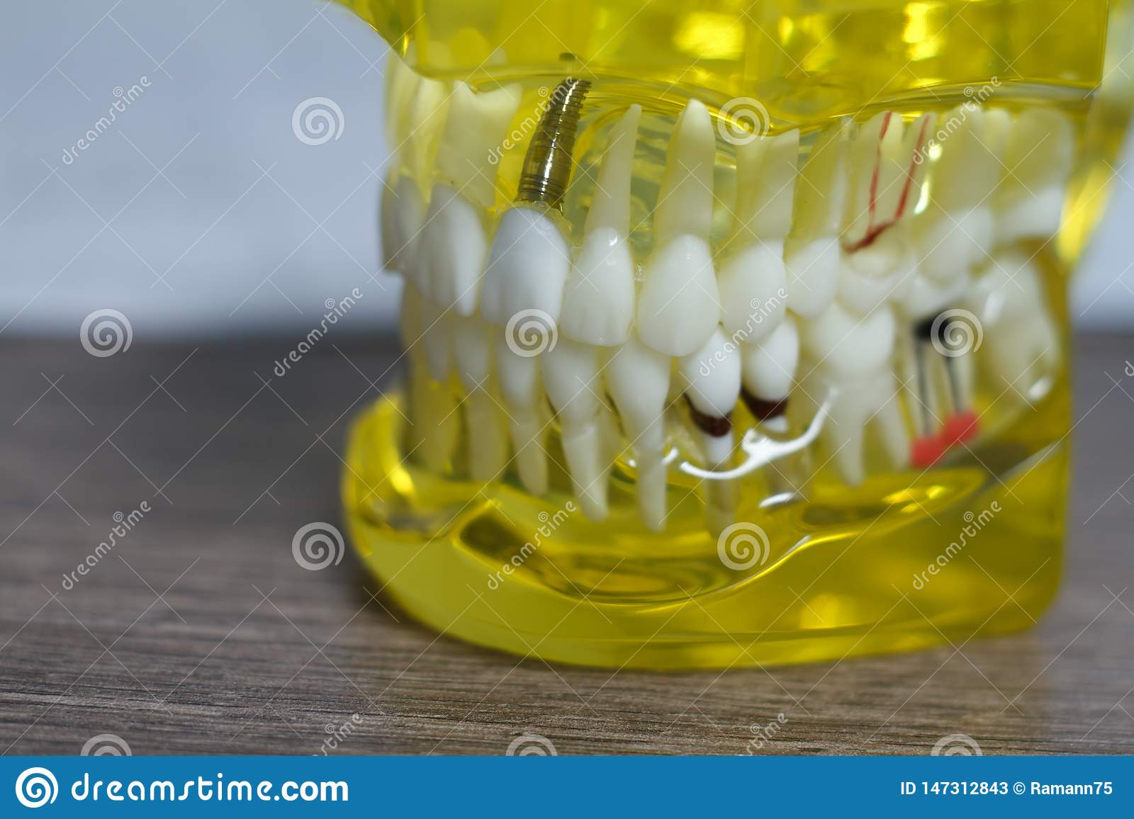 The dental tooth dentistry student learning teaching model showing teeth, roots, gums, gum disease