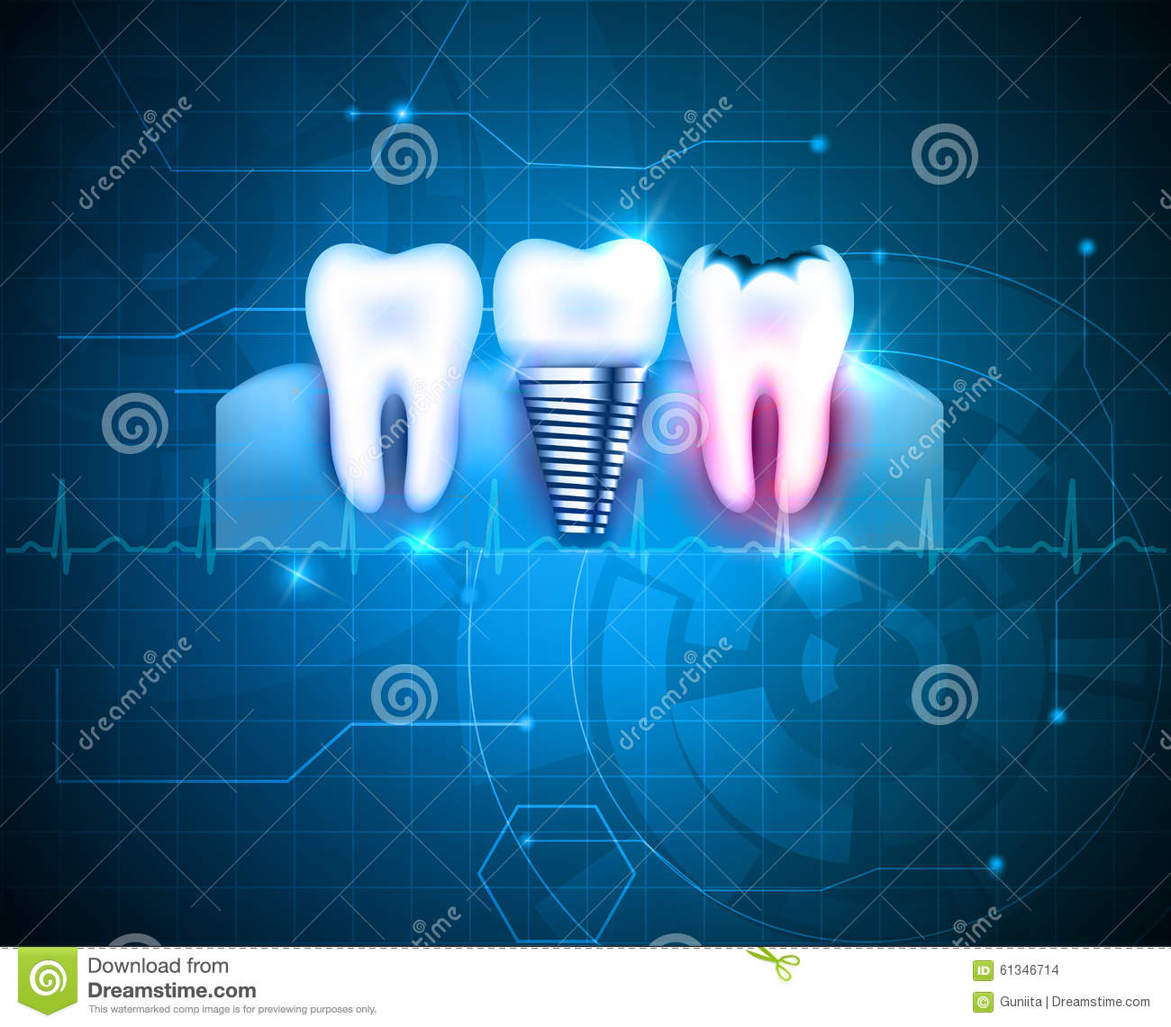 blue paper research technology tooth New materials take a bite out of tooth decay  a dentist uses a blue led light to cross-link and harden the polymer matrix  while researchers advance the self-repairing tooth technology .