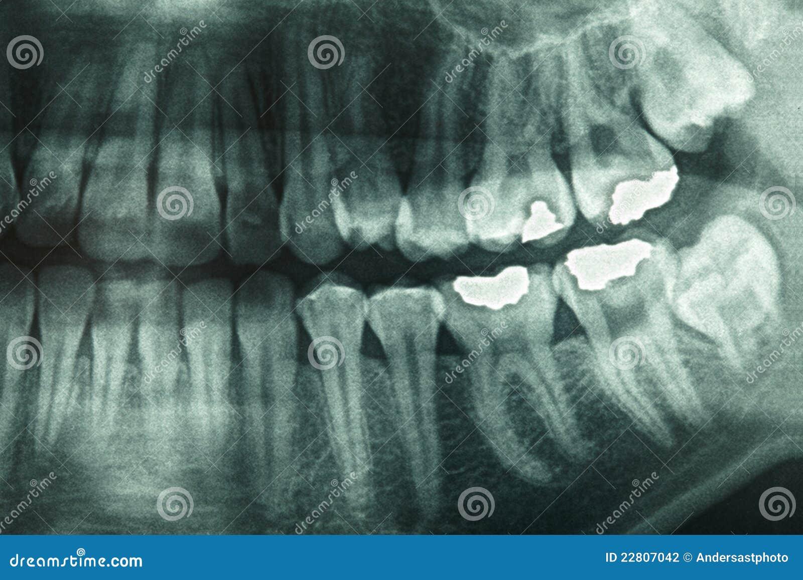 Dental Xray Stock Photography Image 22807042