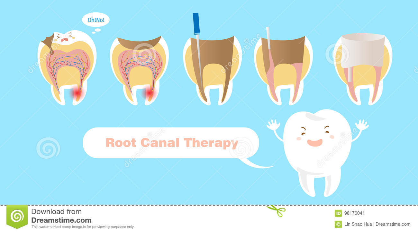 Dente com terapia de canal de raiz