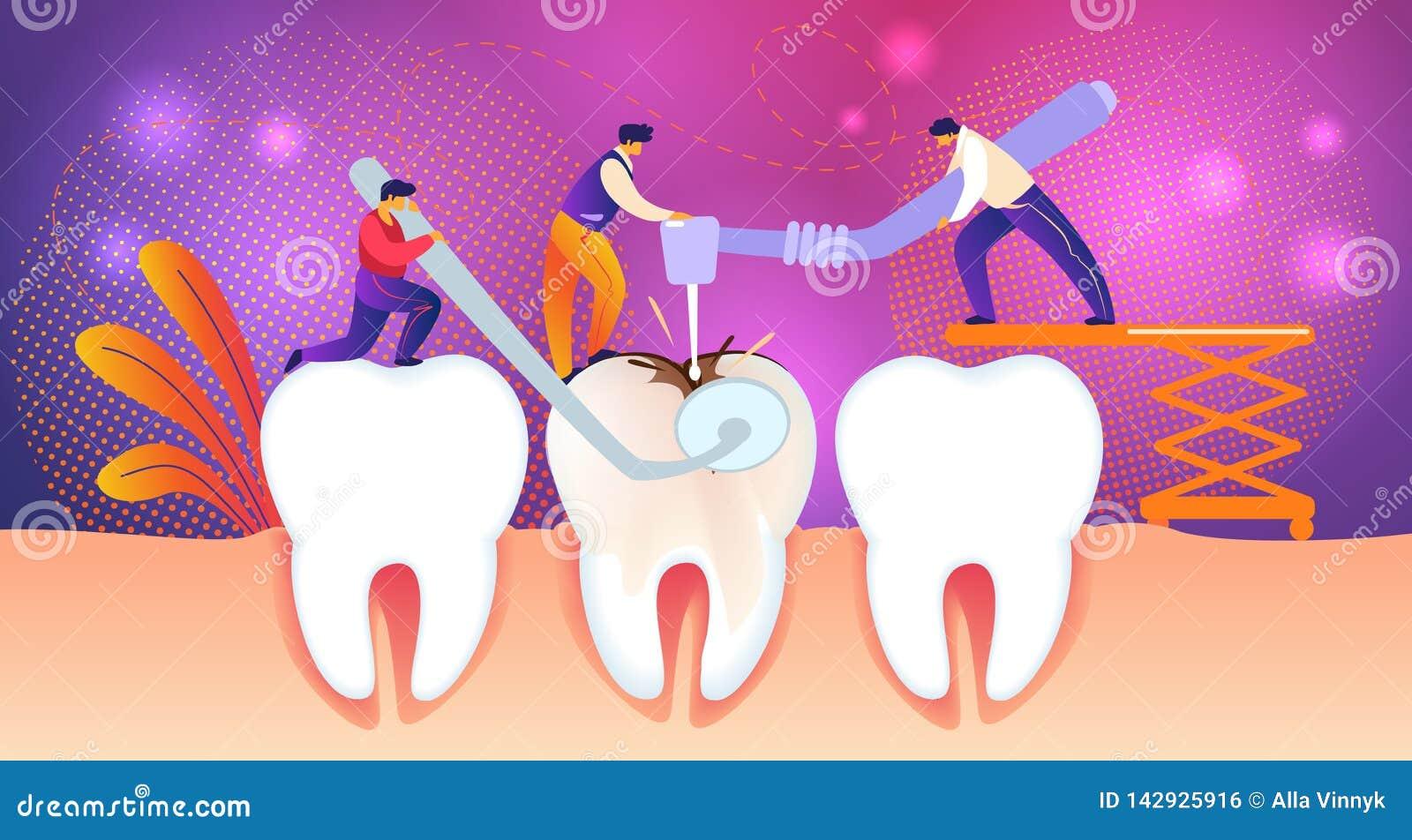 Dente non sano del gigante di Treate degli uomini con il foro della carie