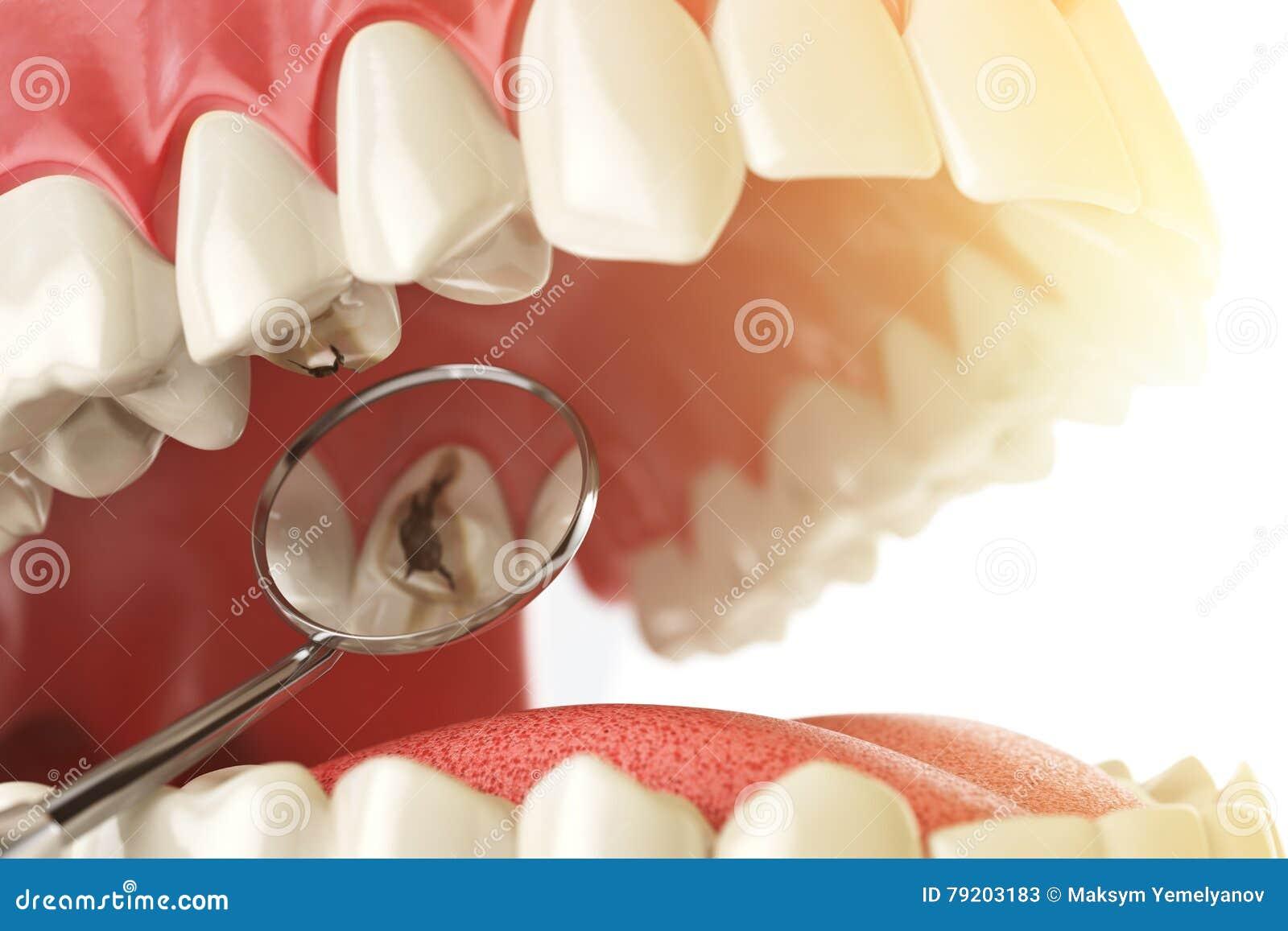 Dente umano con la carie, il foro e gli strumenti Concetto di ricerca dentario