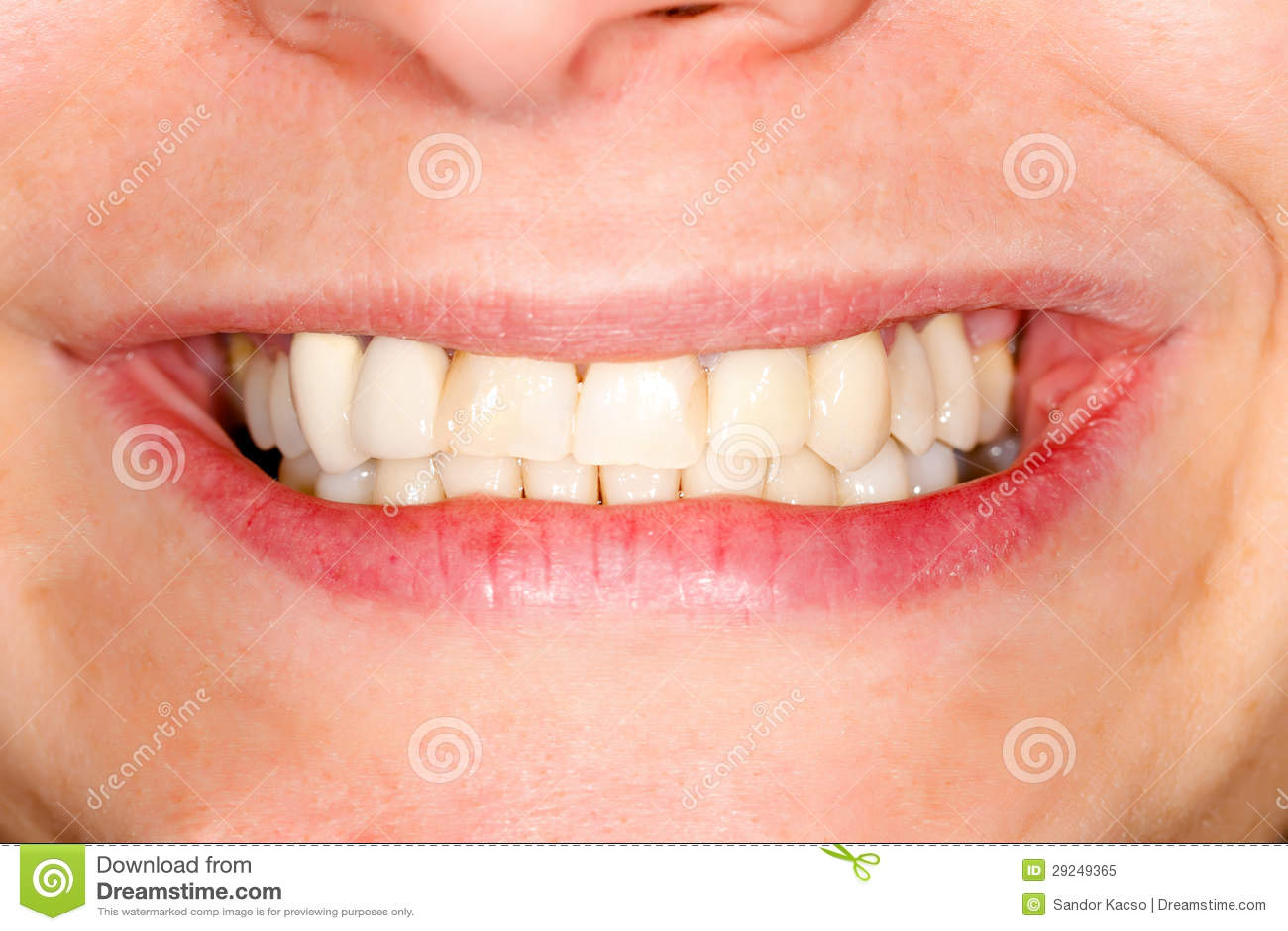 Download Dentes Cerâmicos Pressionados Imagem de Stock - Imagem de saúde, médico: 29249365