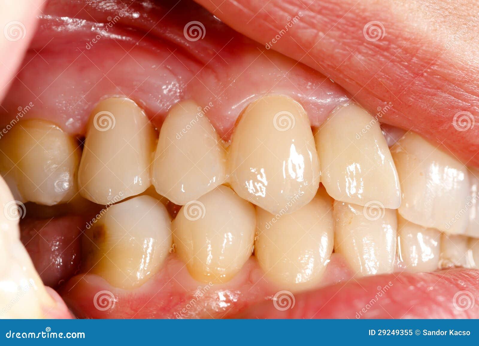 Download Dentes Cerâmicos Pressionados Na Cavidade Oral Imagem de Stock - Imagem de saúde, pontes: 29249355