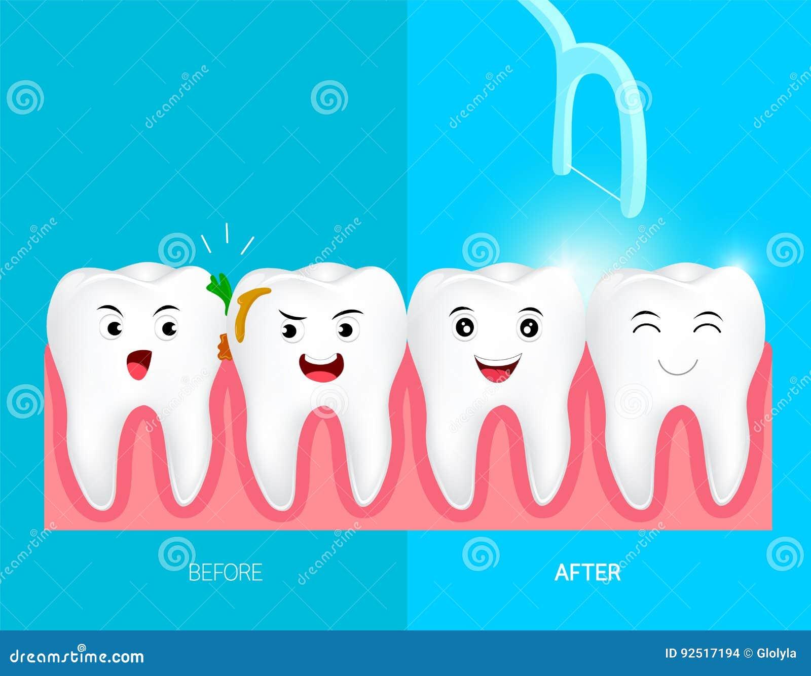 0f173838f Dentes Com Fio Dental Para Cuidados Médicos Ilustração do Vetor ...