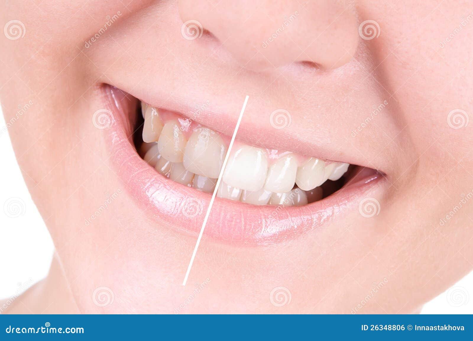 Dentes que whitening. Cuidado dental