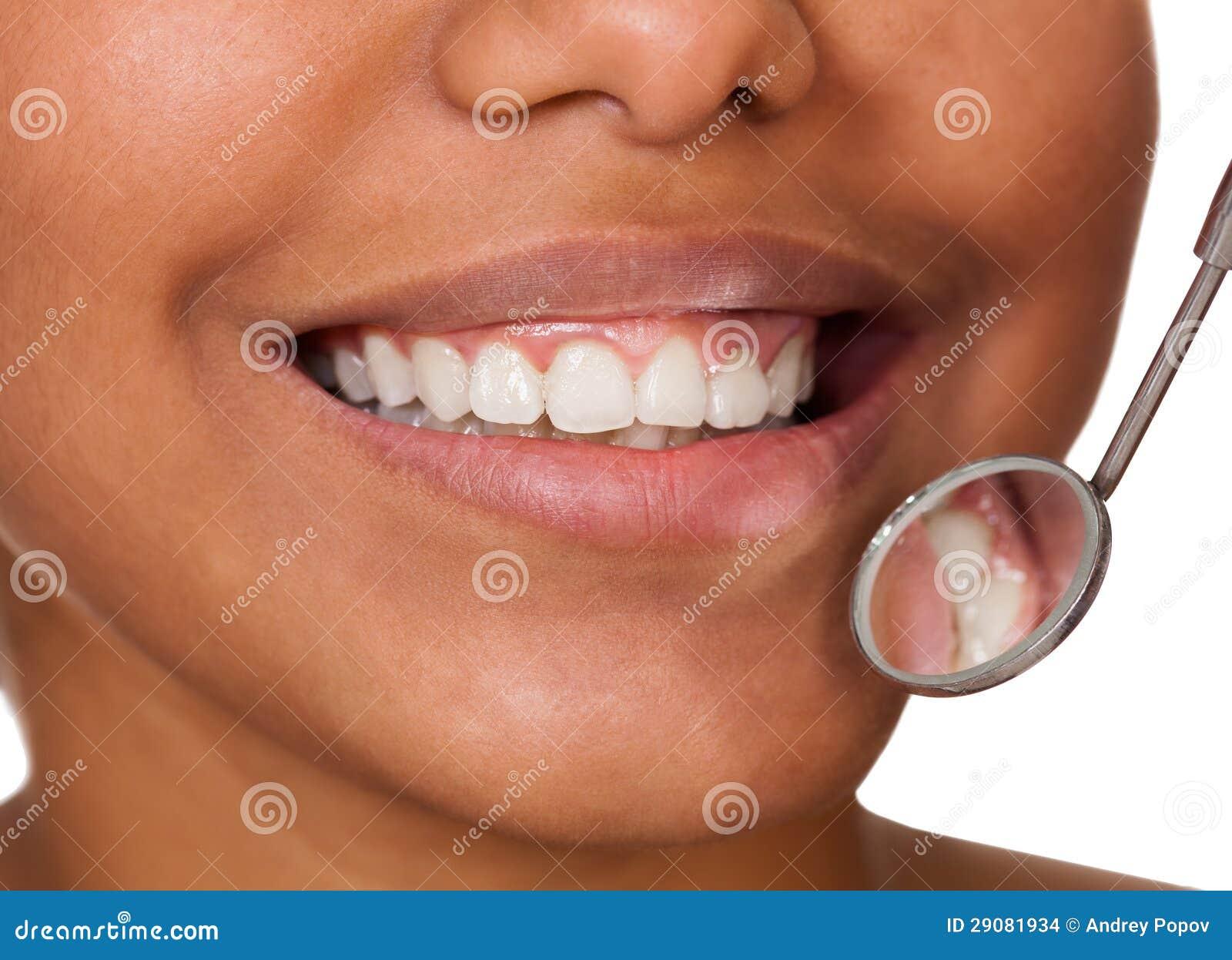 Denti sani della donna