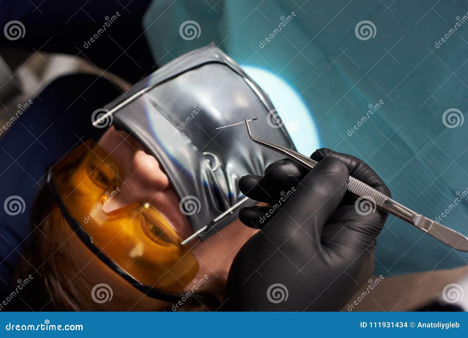 Dentist in black gloves holds tweezers over patient using cofferdam