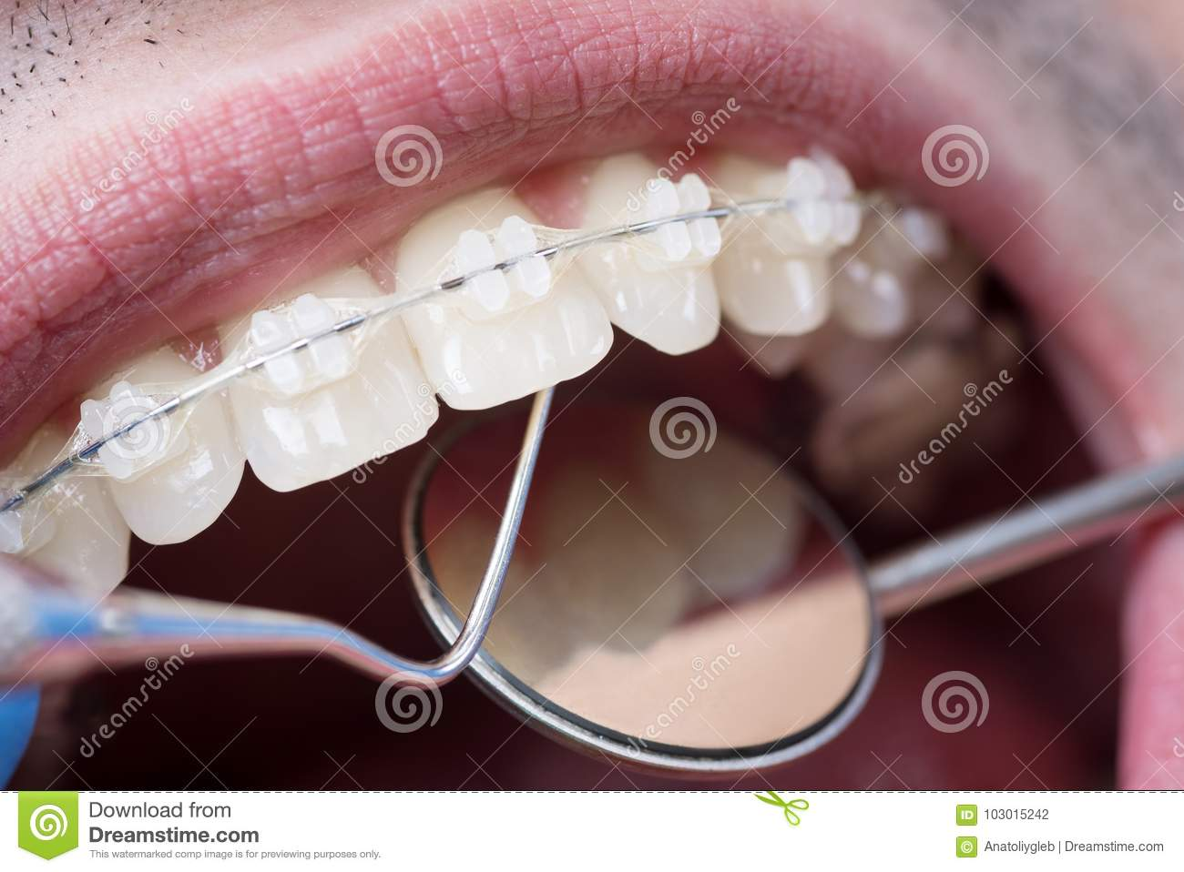 Dentist checking up teeth with ceramic brackets using dental tools - probe and mirror