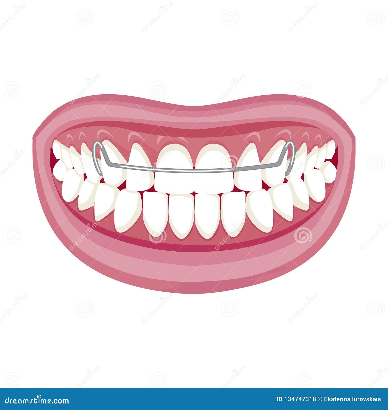 Dentist, Orthodontist. Vector Illustration. Braces On ...