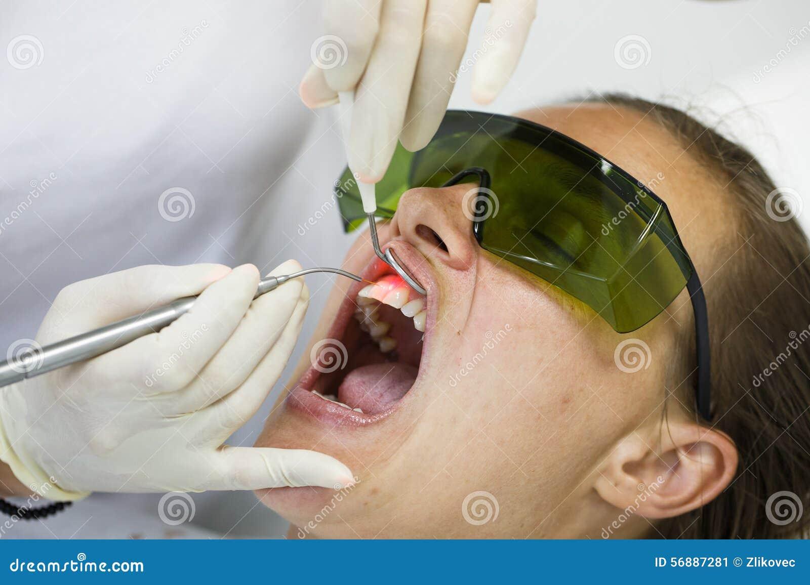 Dentista che per mezzo di un laser dentario del diodo moderno