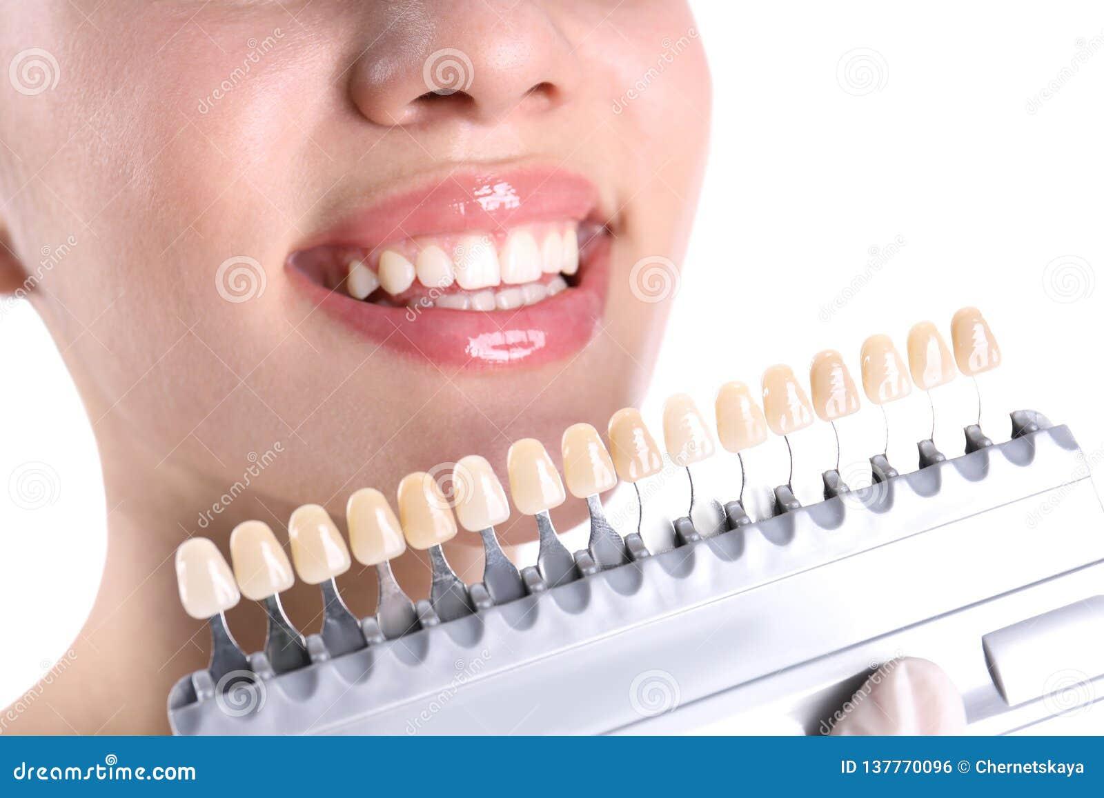 Dentista que comprueba el color de los dientes de la mujer joven