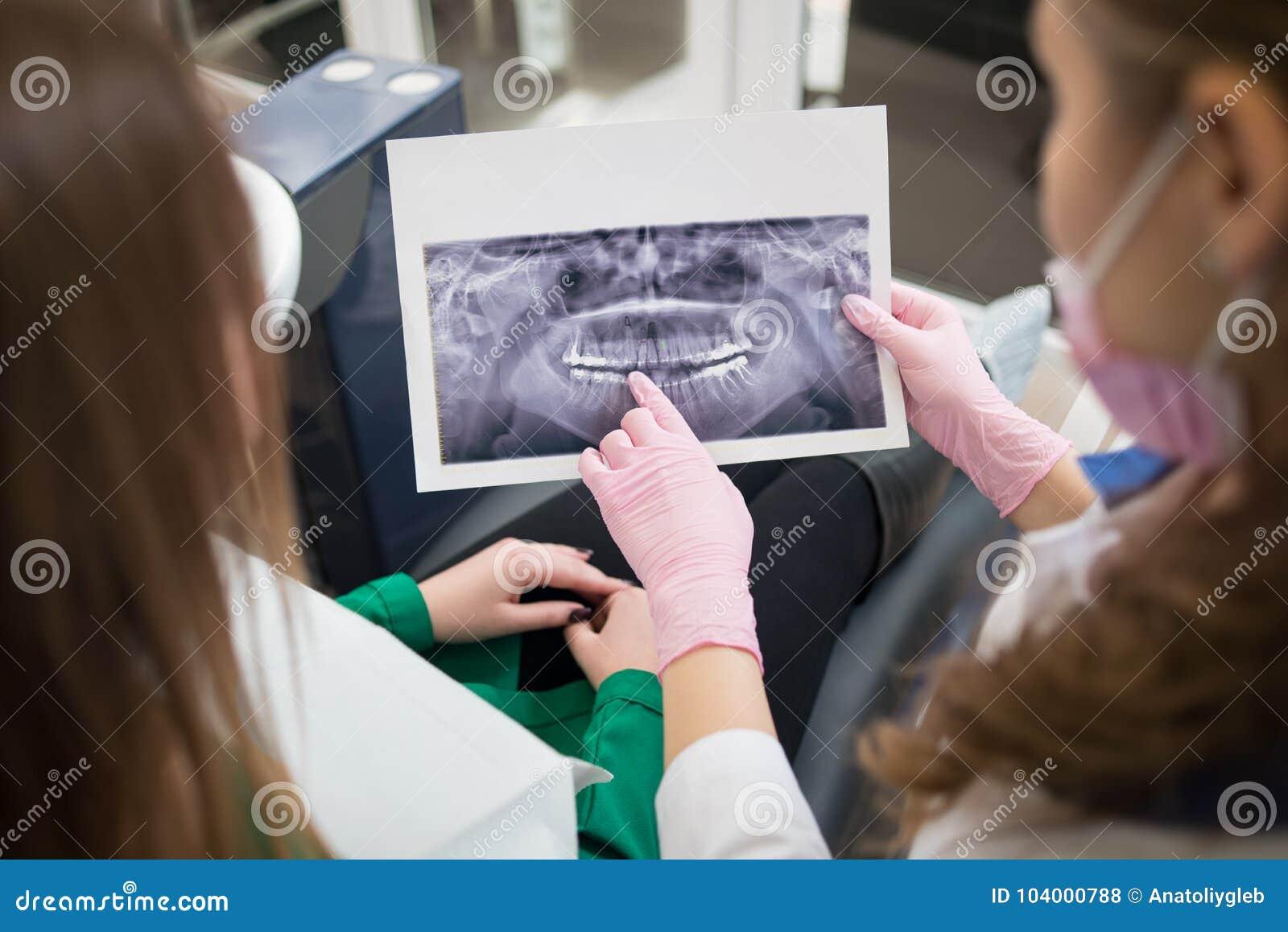 Dentiste montrant les détails de la photo de rayon X au patient féminin dans le bureau dentaire et se préparant au traitement den