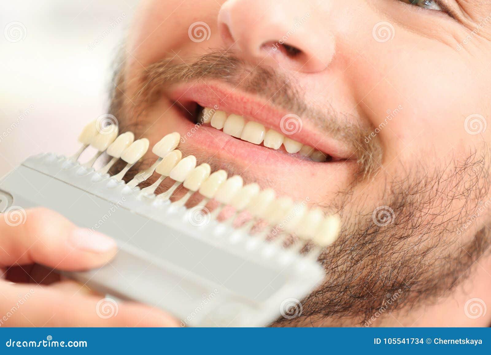 Dentiste vérifiant et sélectionnant la couleur des dents du ` s de jeune homme, plan rapproché
