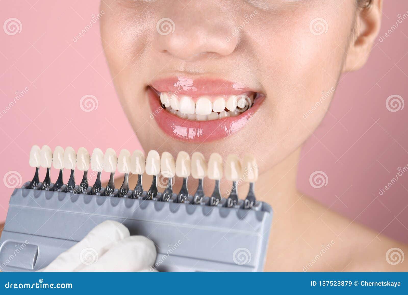 Dentiste vérifiant la couleur des dents de la jeune femme