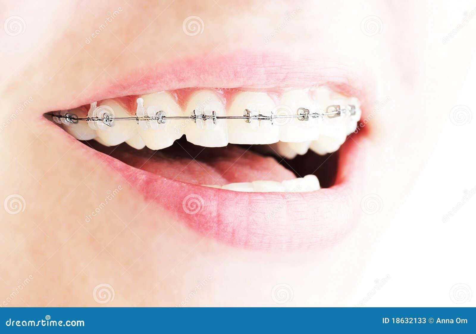 Dents avec des supports