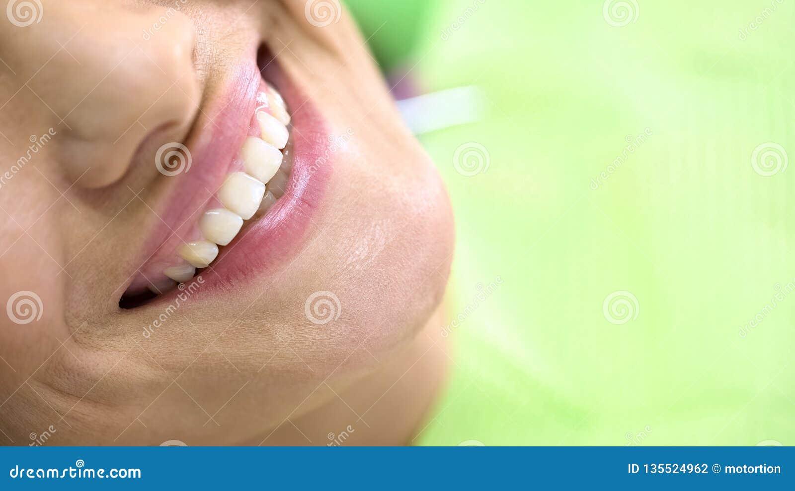 Dents blanches comme neige de client satisfaisant d art dentaire, procédure de blanchiment, clinique