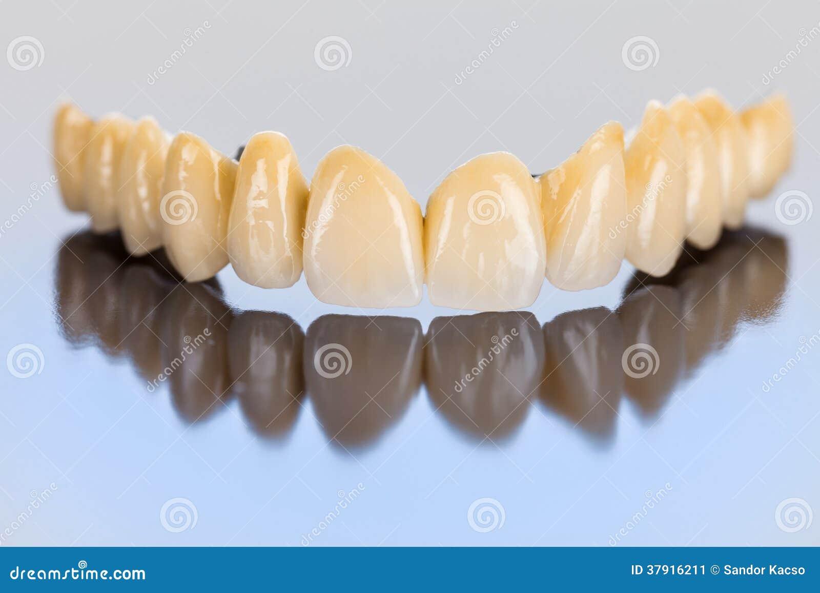 Dents en céramique - pont dentaire