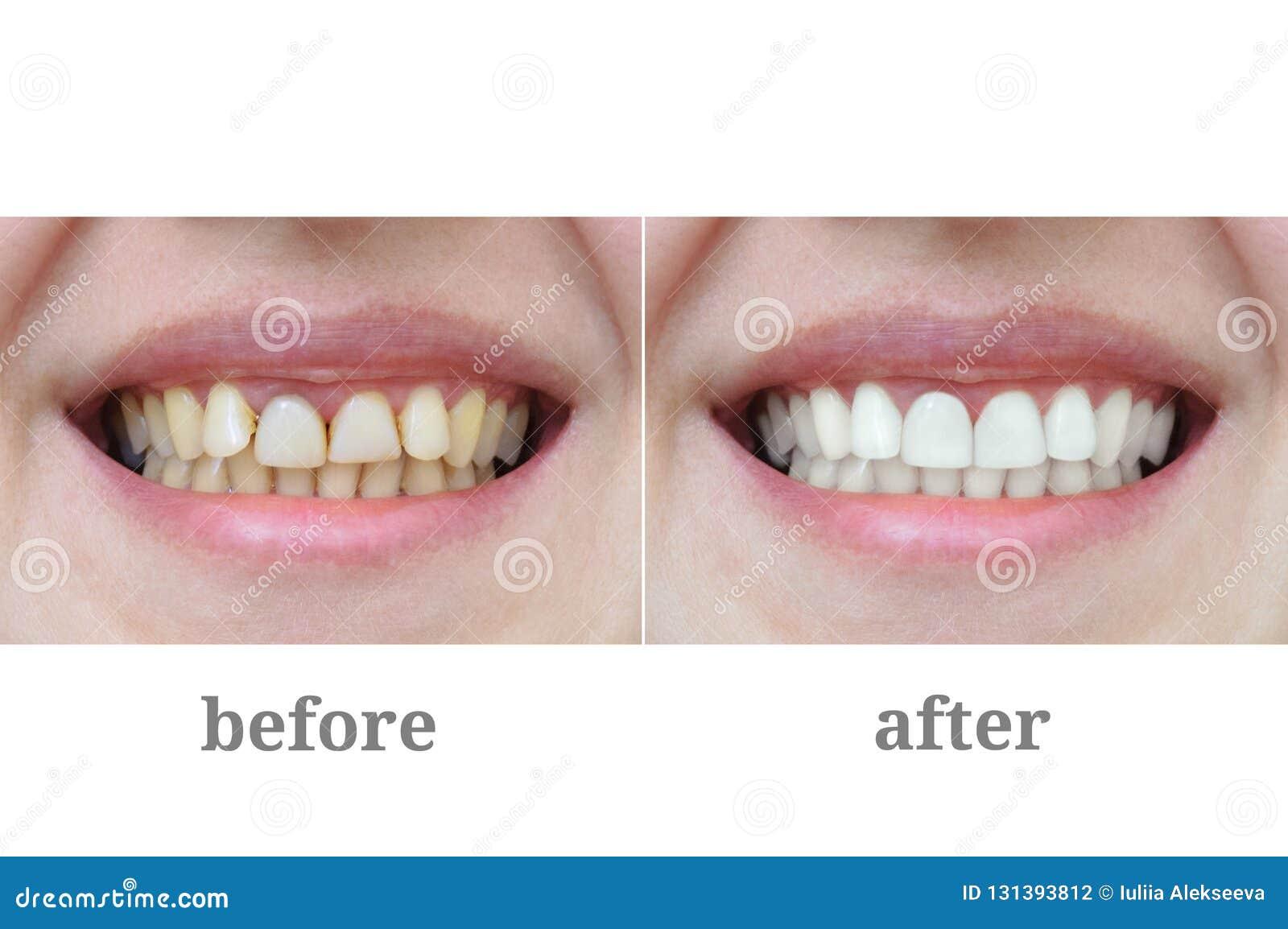 Dents en gros plan après thérapie dentaire et le blanchiment