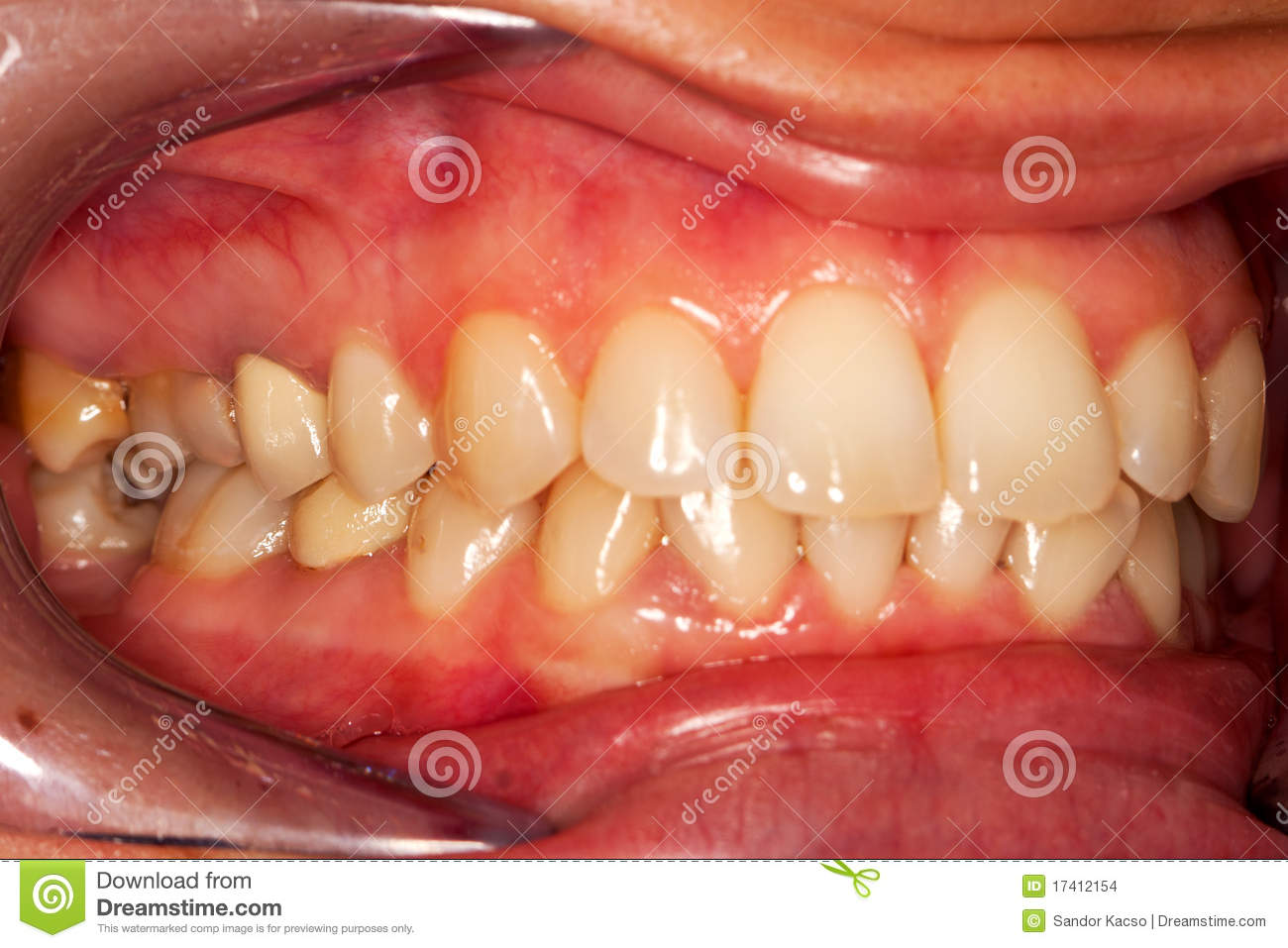 Dents humaines