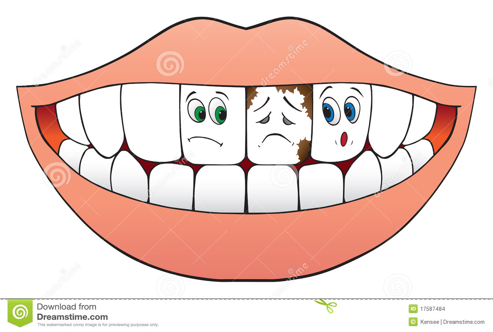 Dents nerveuses