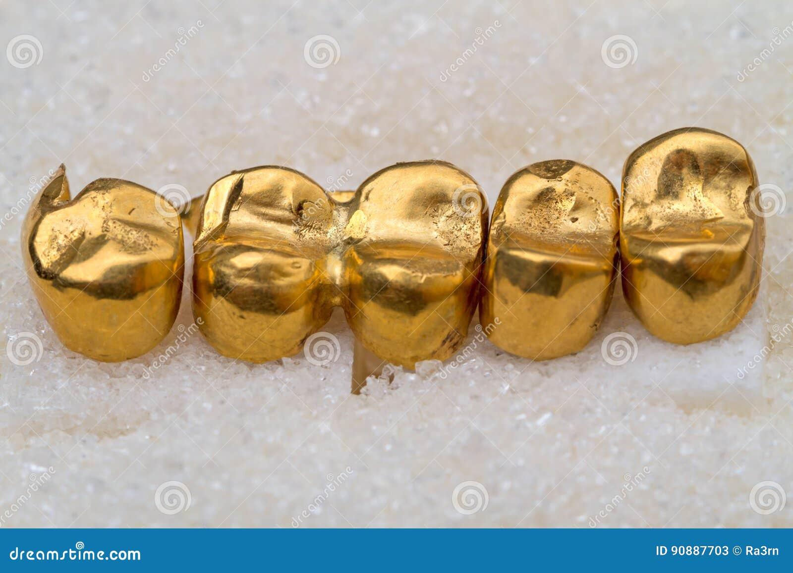 Dents prosthétiques d or sur le sucre