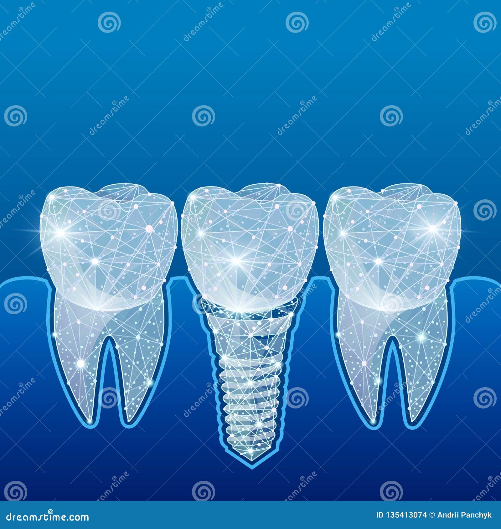 Dents saines et implant dentaire dentistry Implantation des dents humaines Illustration