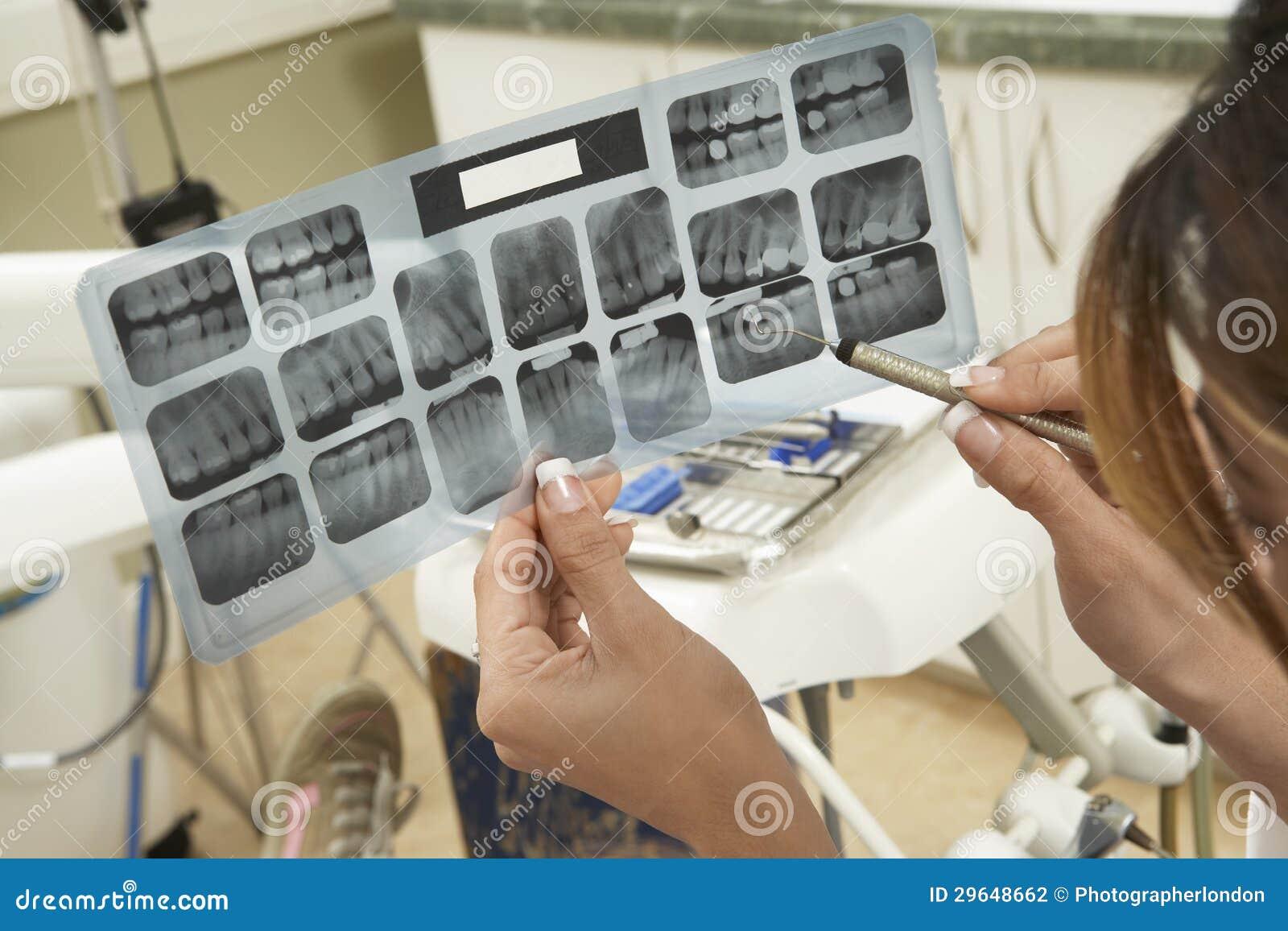 Dentysta Egzamininuje zębu promieniowanie rentgenowskie