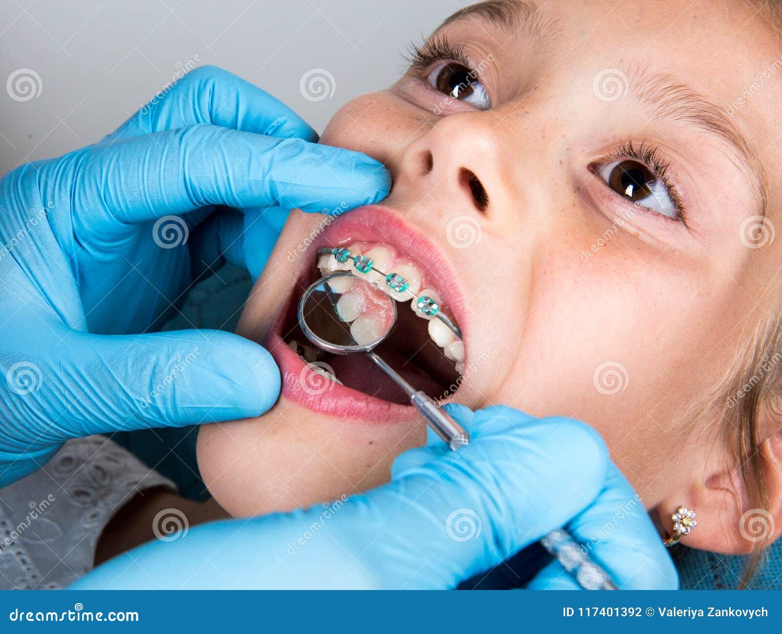Dentysta, ortodonta egzamininuje troszkę dziewczyny ` s cierpliwych zęby
