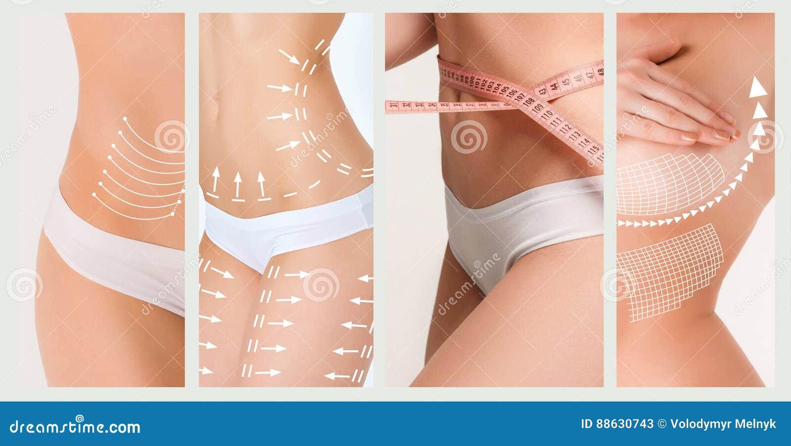 Der Celluliteabbauplan Weiße Markierungen auf Körper der jungen Frau