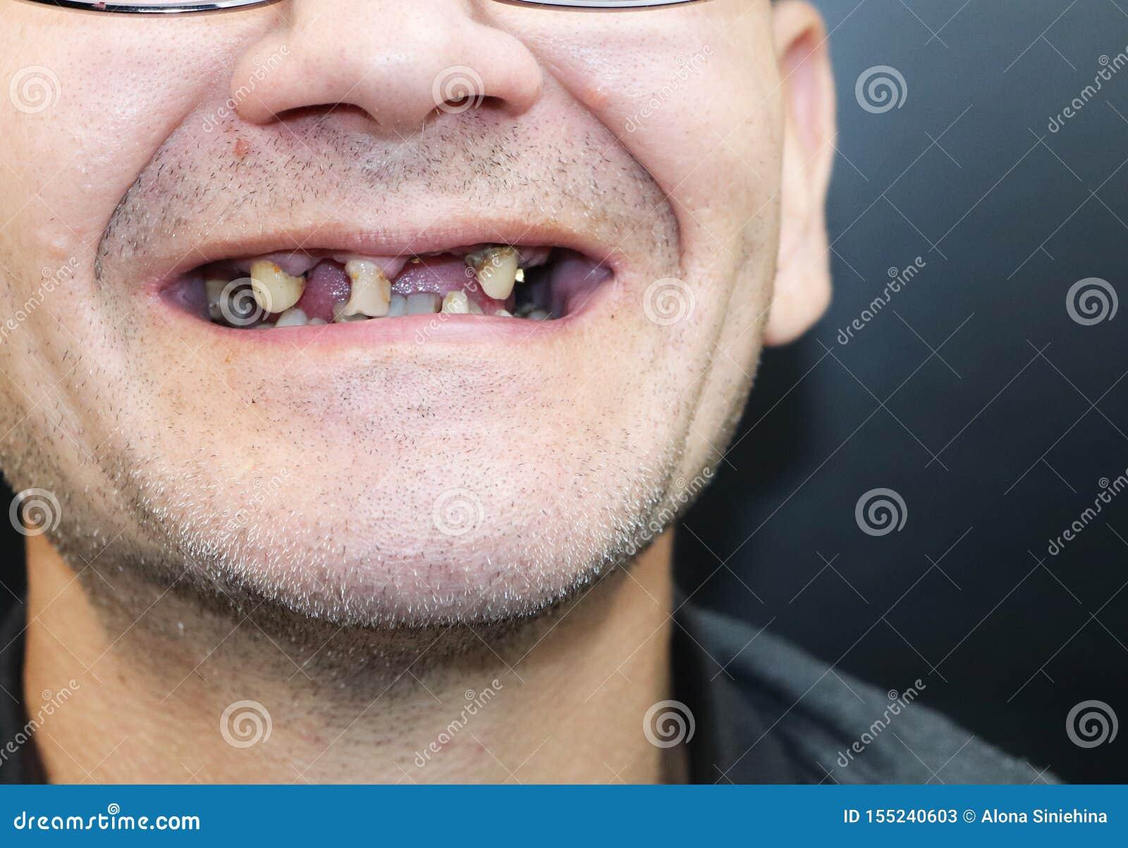 Der Mann Hat Faule Zähne, Zähne Herausfiel, Gelbe Und