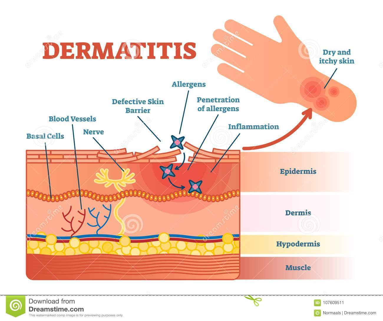 Dermatitis płaski wektorowy ilustracyjny diagram z skór warstwami i allergen ruchem Edukacyjna medyczna informacja