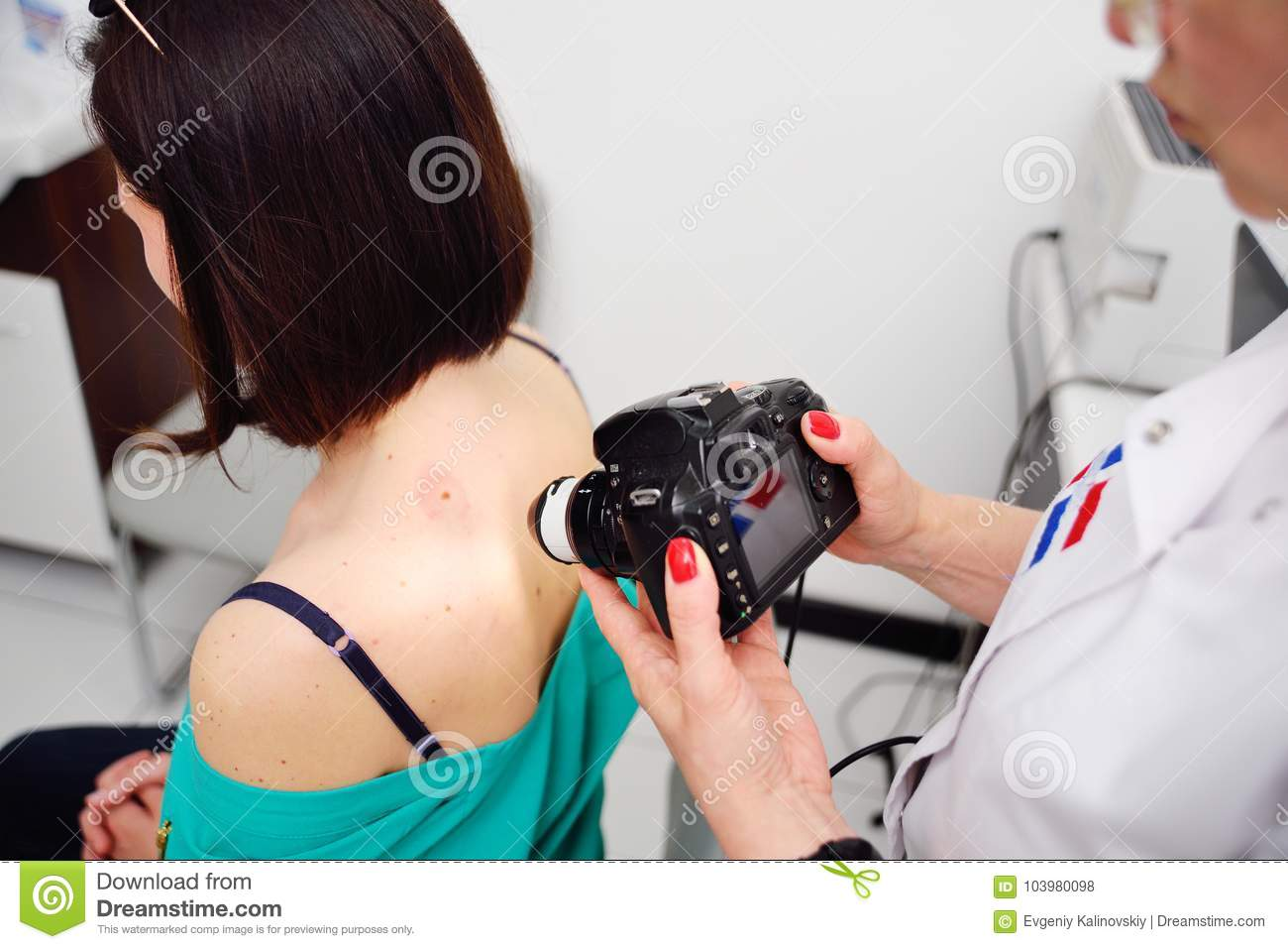 The dermatologist examines the moles or acne of the patient with a dermatoscope