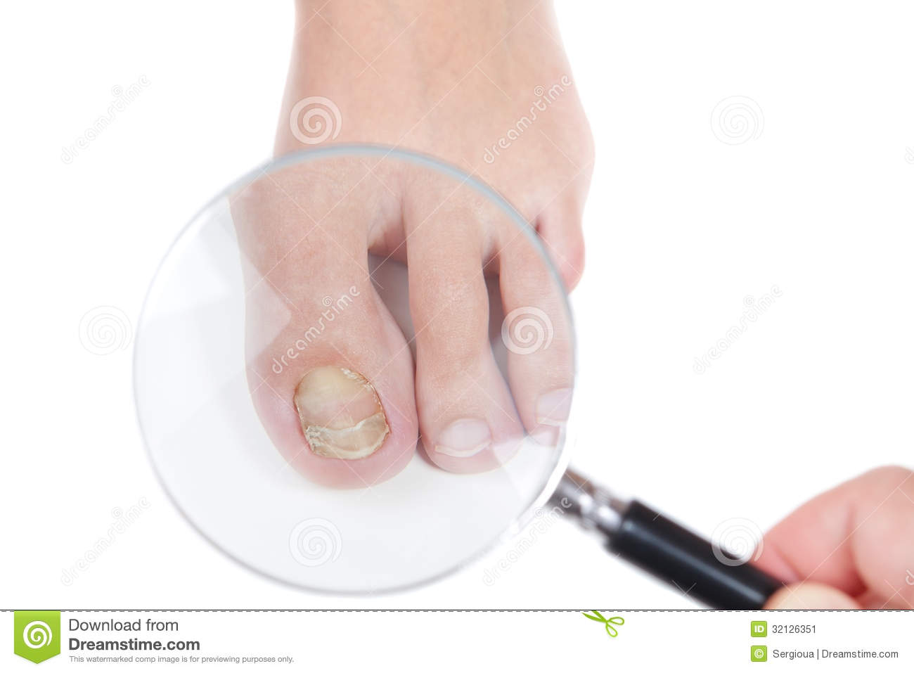 Dermatologist Examines The Nail On The Presence Of The Eczema. Stock ...