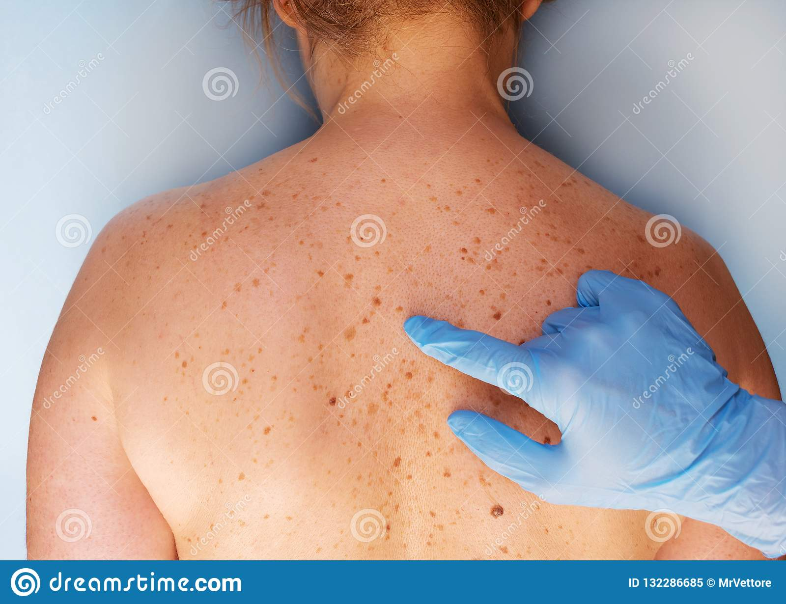 Dermatologist examining the patient in the clinic. Problem skin with a mole on the back. Closeup view.