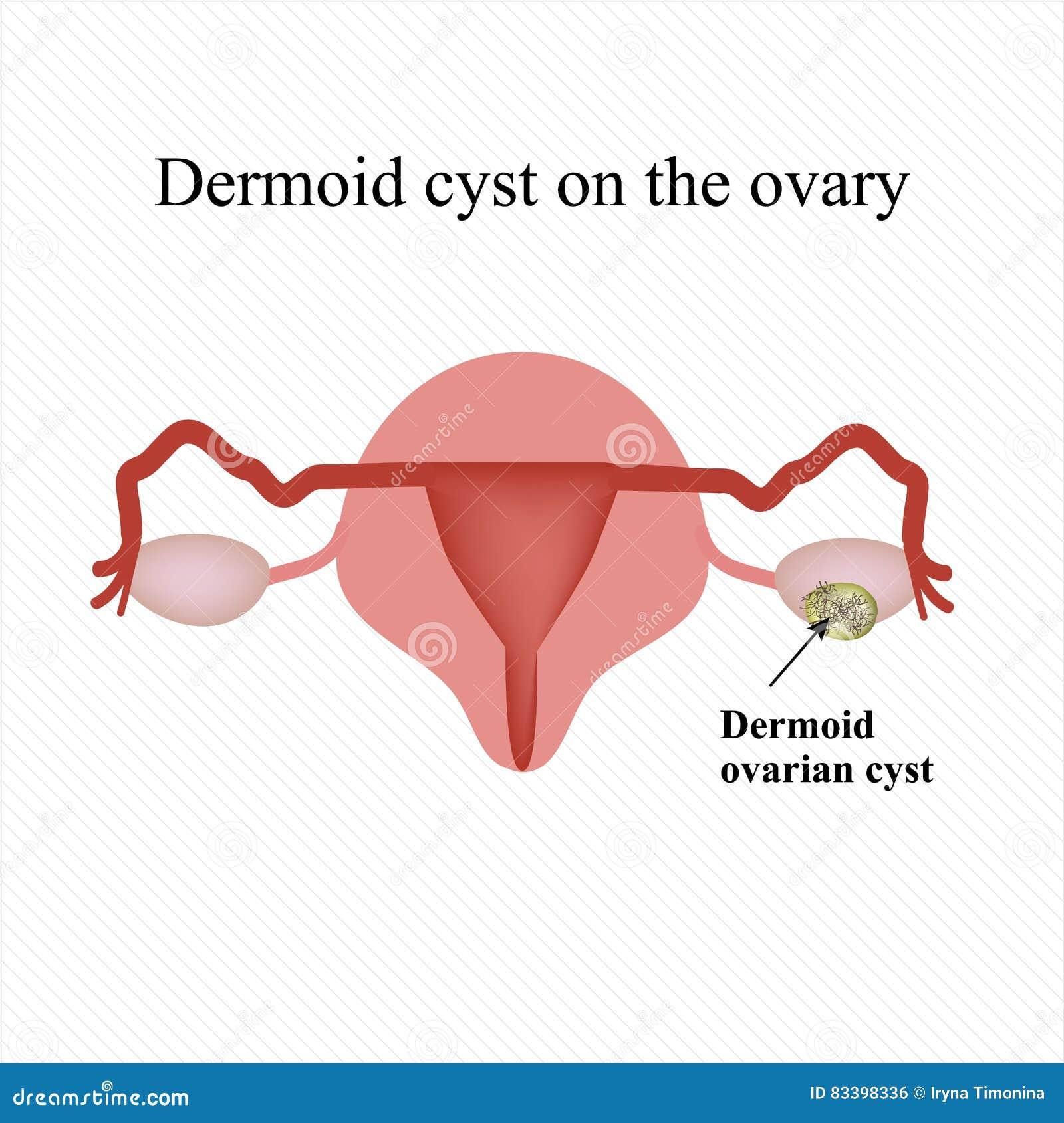 Dermoid Cyste Op De Eierstok Infographics Vector ...