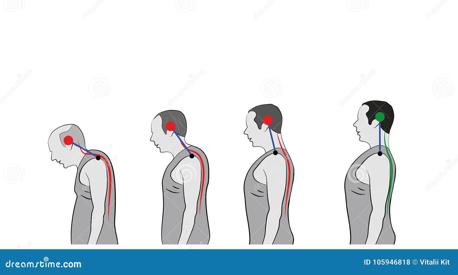 Desarrollo de una postura inclinada con edad, mostrando la curvatura cada vez mayor de la espina dorsal
