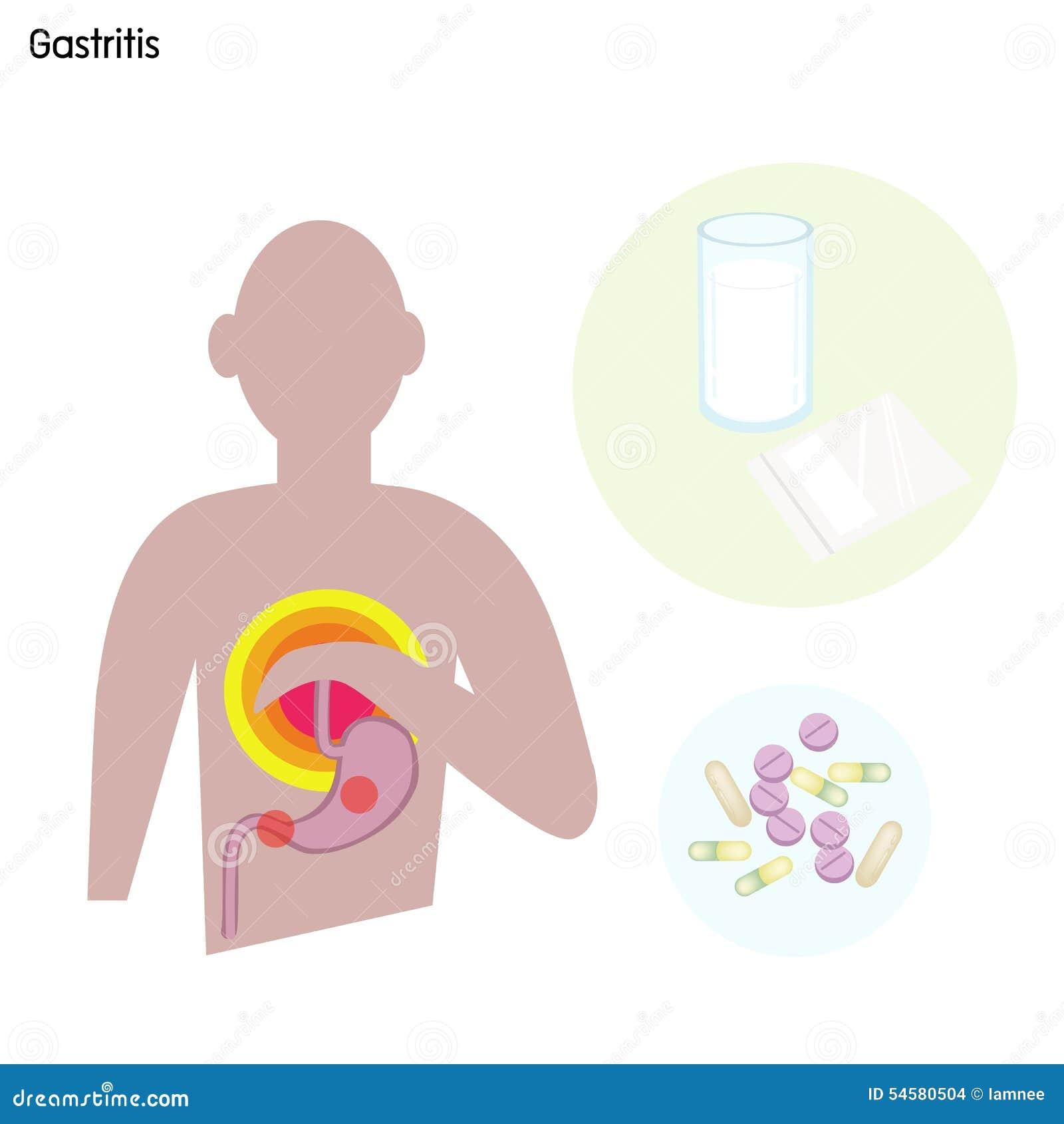 Desordem ou gastrite do estômago com tratamento médico