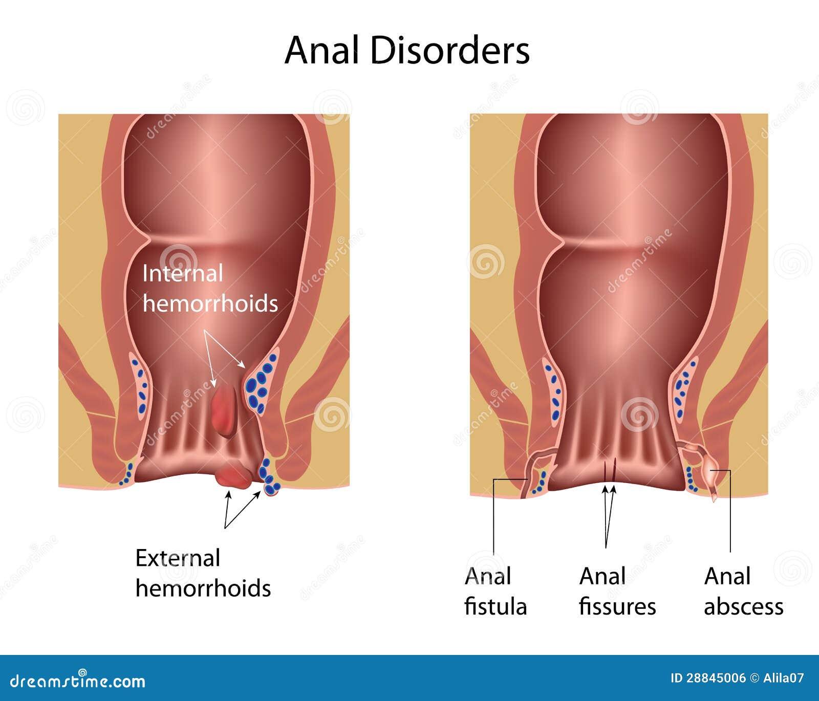 Desordenes anales