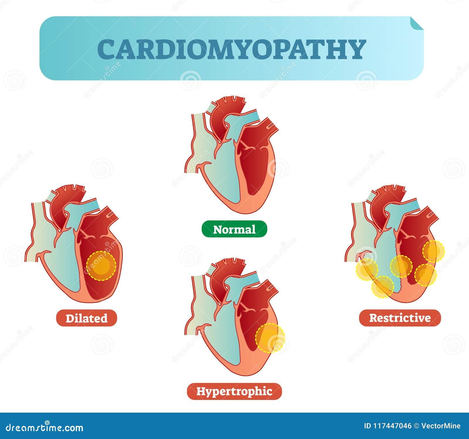 Desordens médicas diagrama de seção transversal da cardiomiopatia, exemplos da ilustração do vetor