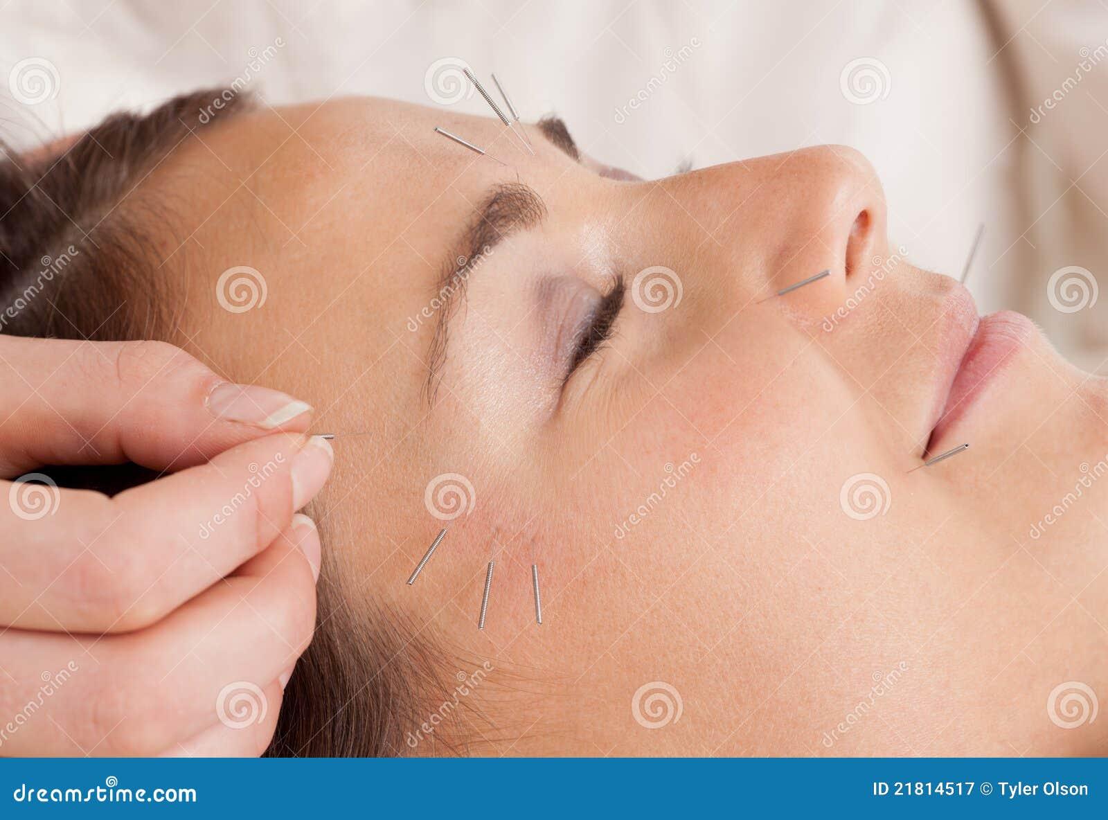 Detalhe facial do tratamento da acupunctura