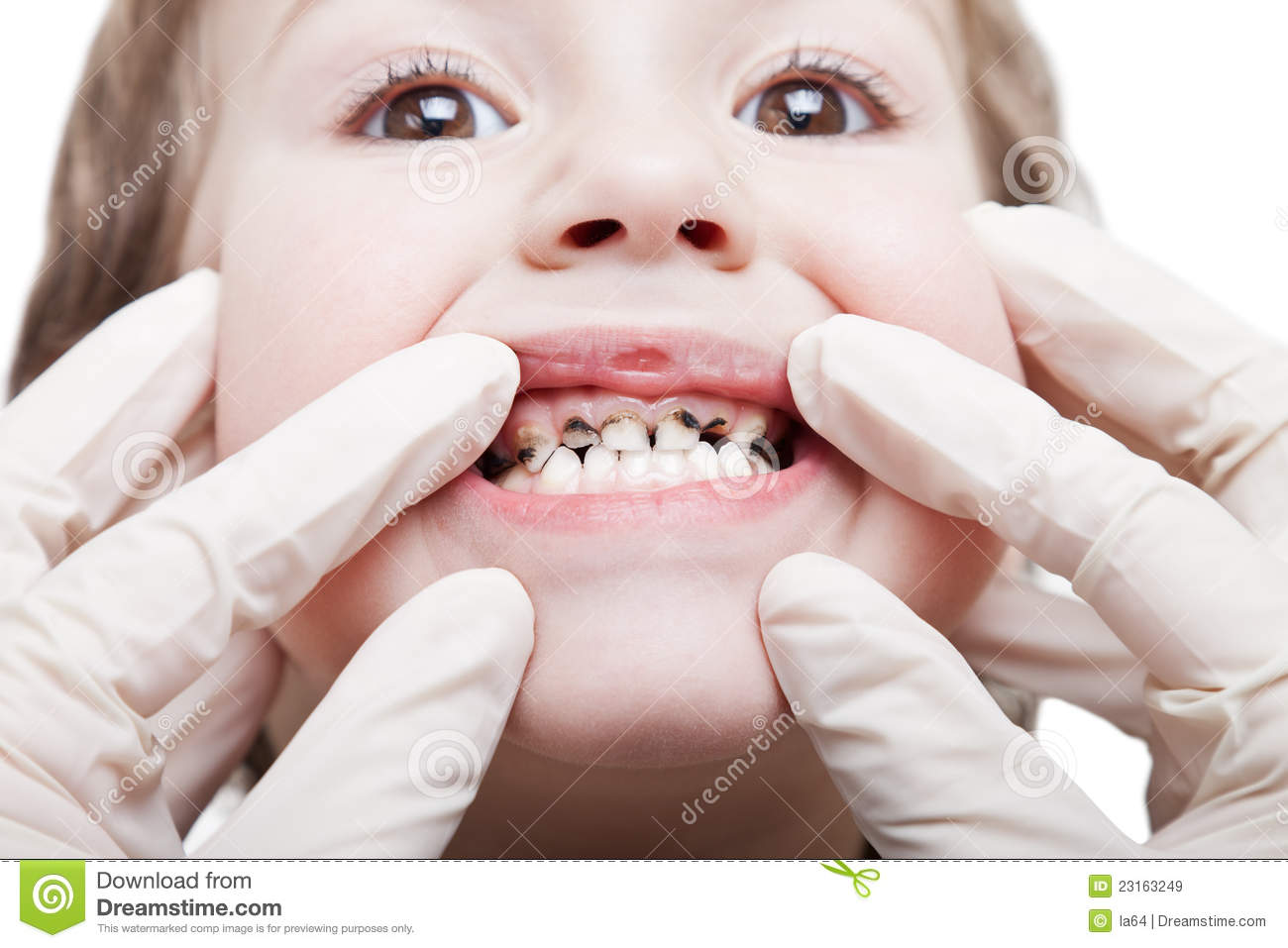 White Spot Lesions together with Decayed Tooth further How To Make Brushing Teeth Fun For Your Kids besides Risk Tooth Decay in addition Maryland Bridges. on early childhood caries