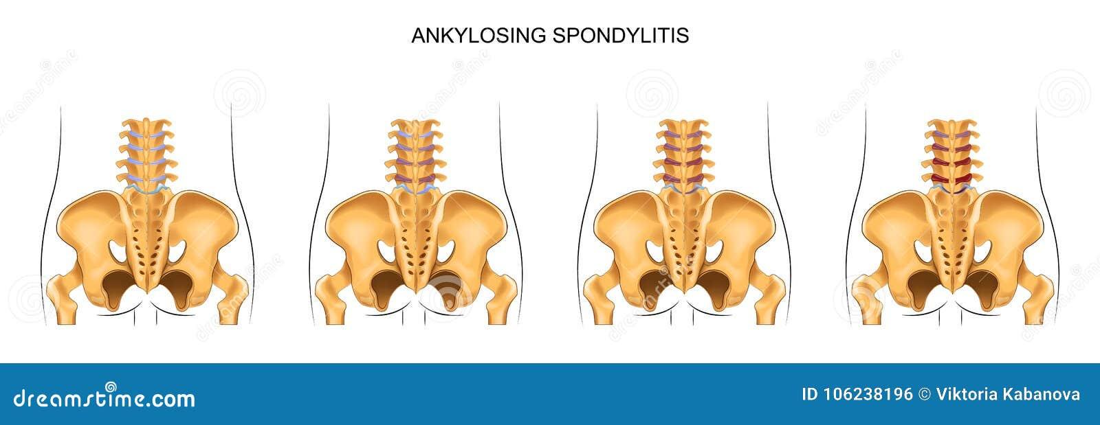 The Development Of Ankylosing Spondylitis In The Lumbar Spine Stock