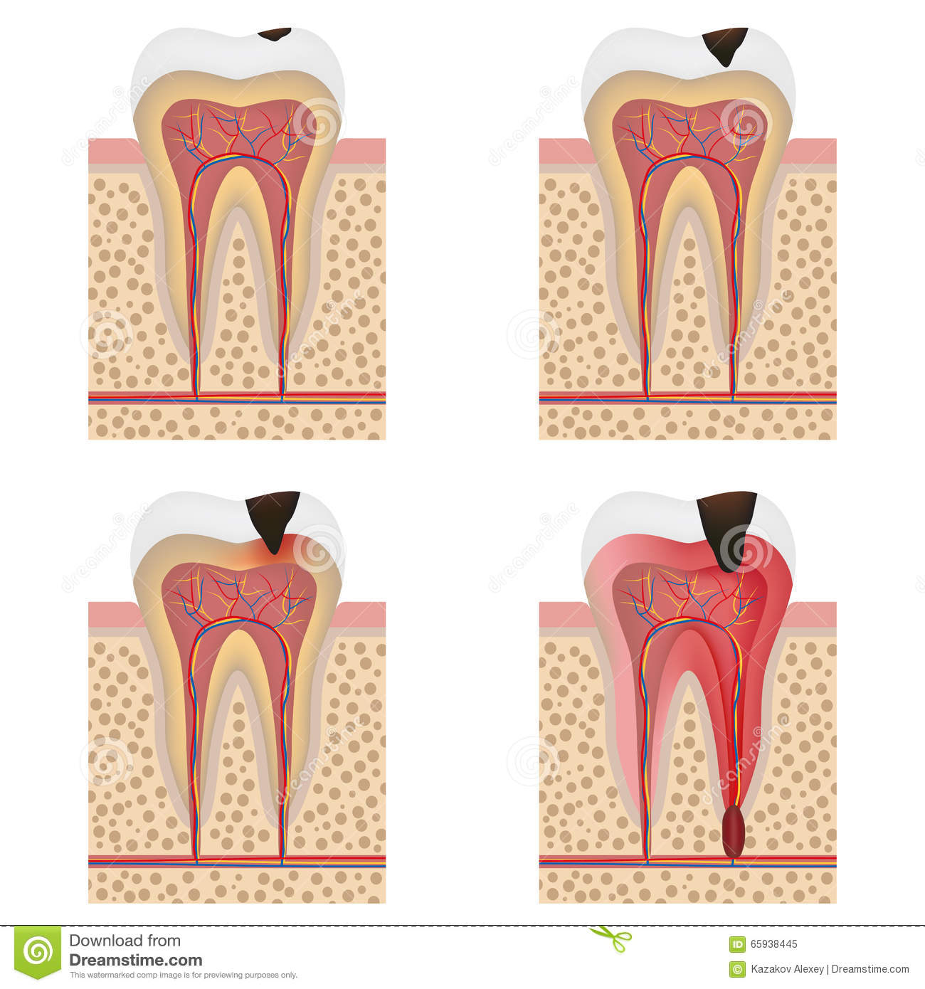 Stages Of Caries Development Cartoon Vector ...
