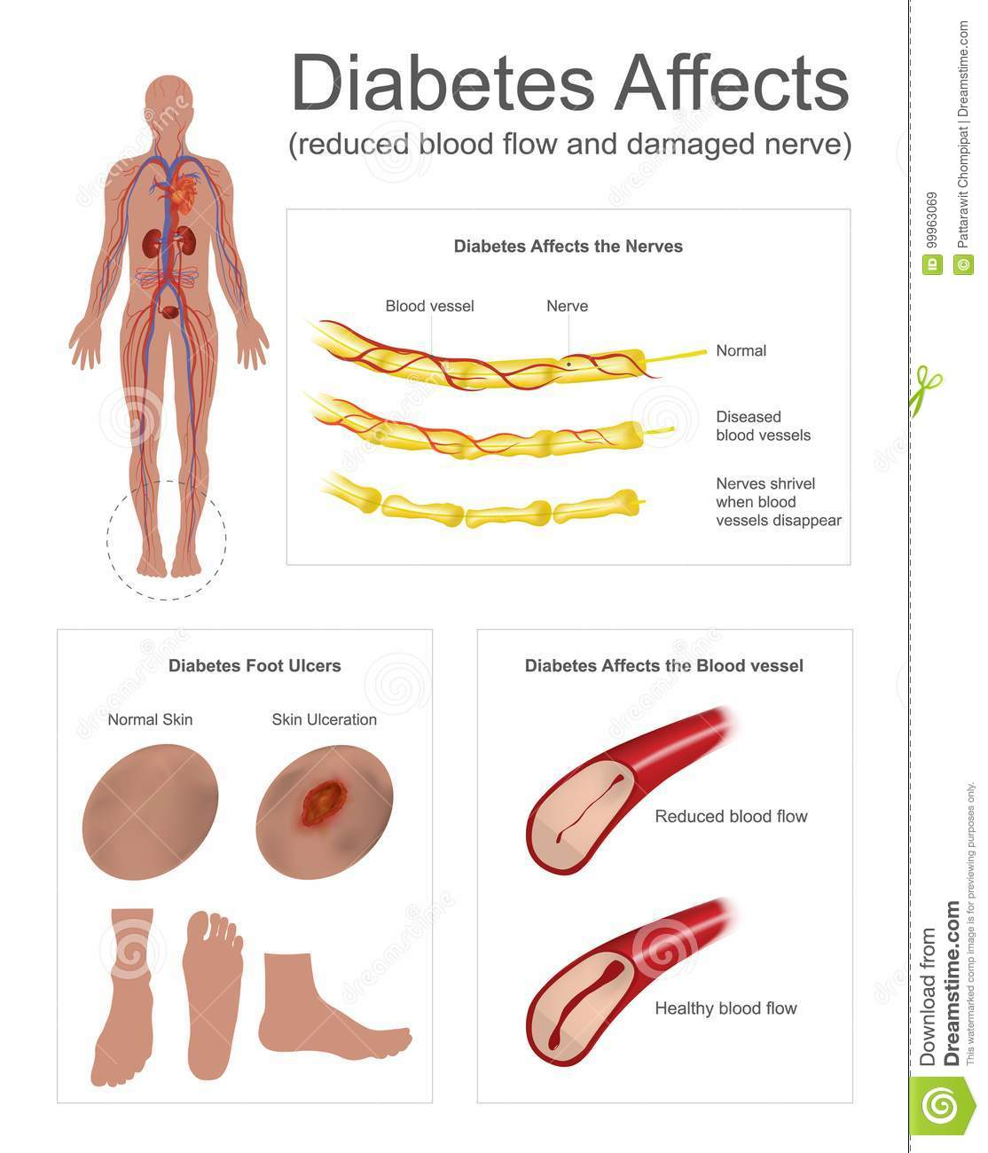 Diabetes Affects The Nerves And Vessels Stock Vector Illustration