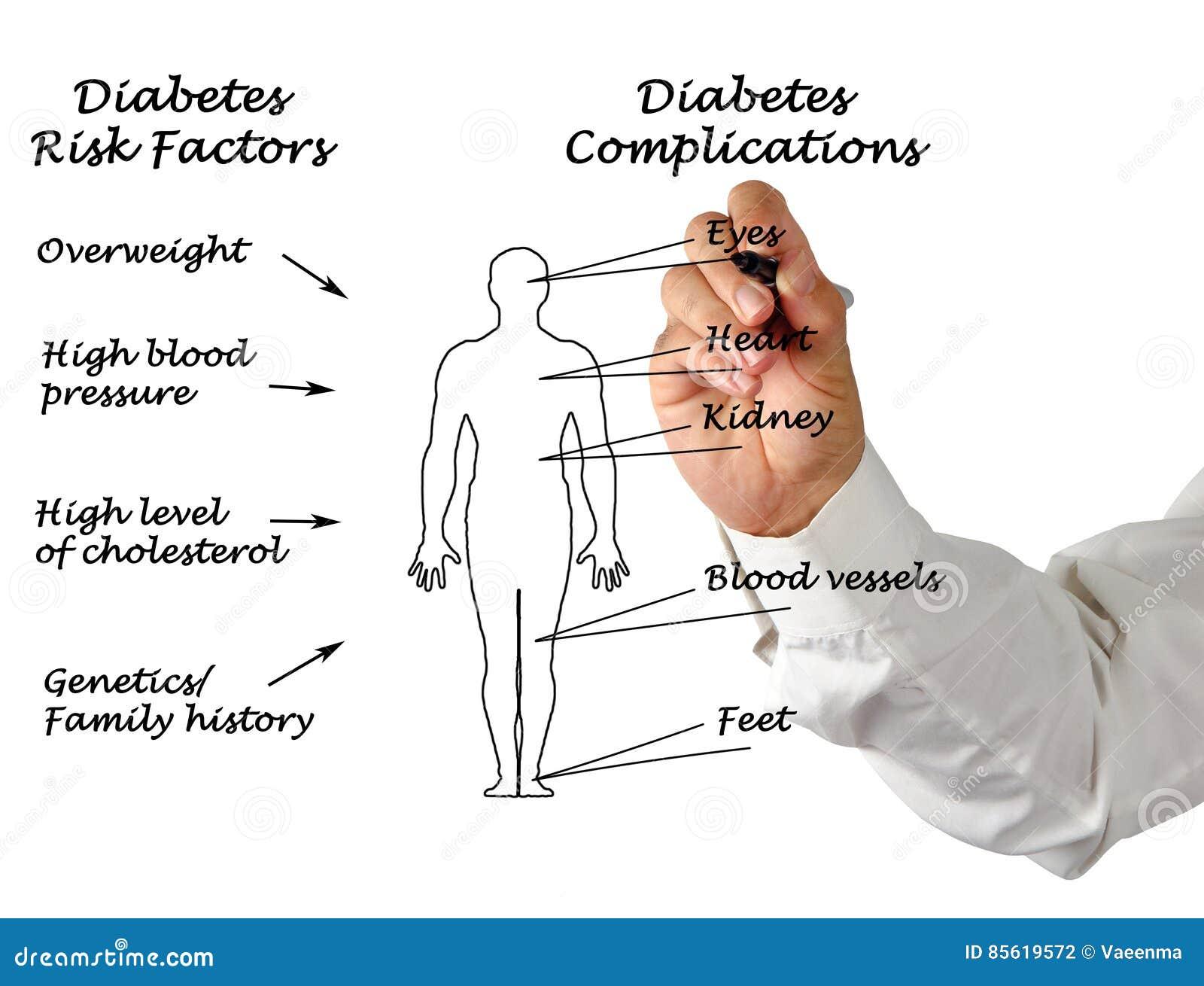 Diabetes Complications Royalty